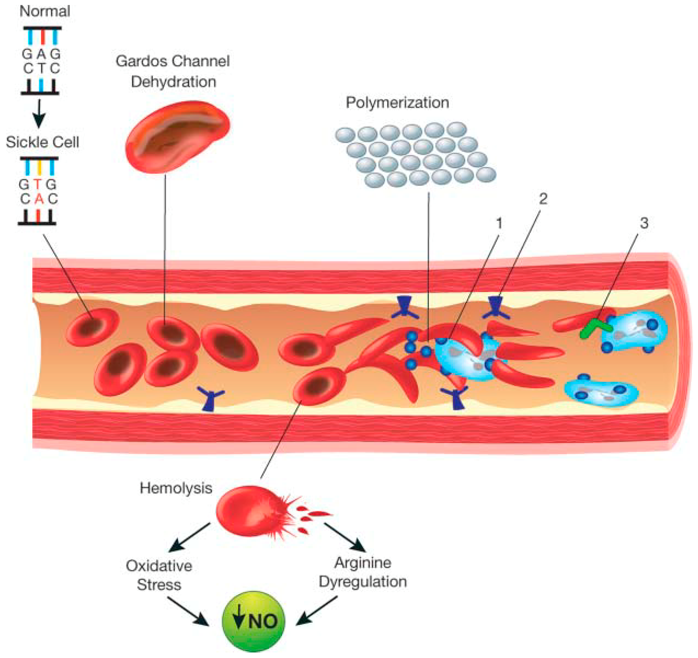 IJNS | Free Full-Text | Sickle Cell Disease—Genetics
