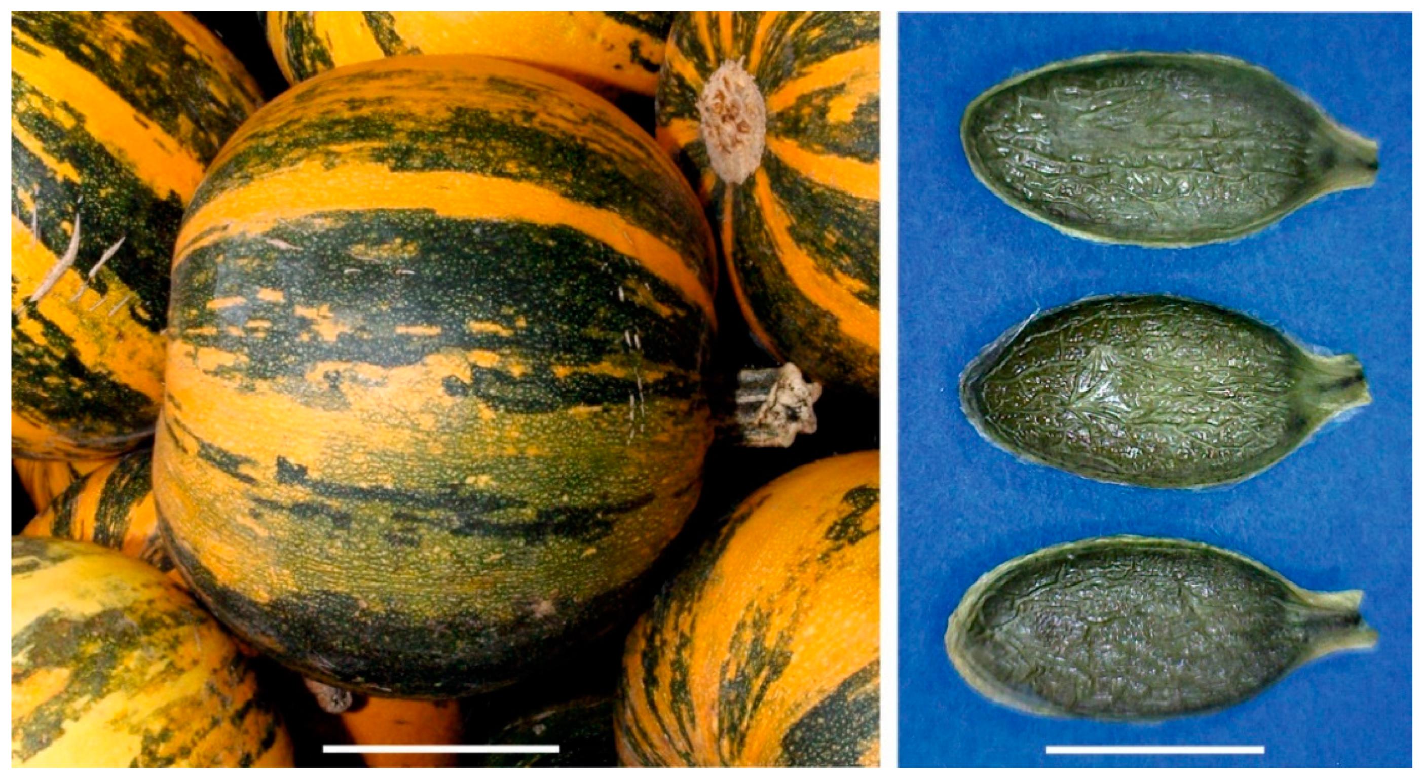 pumpkin seeds prostate pubmed
