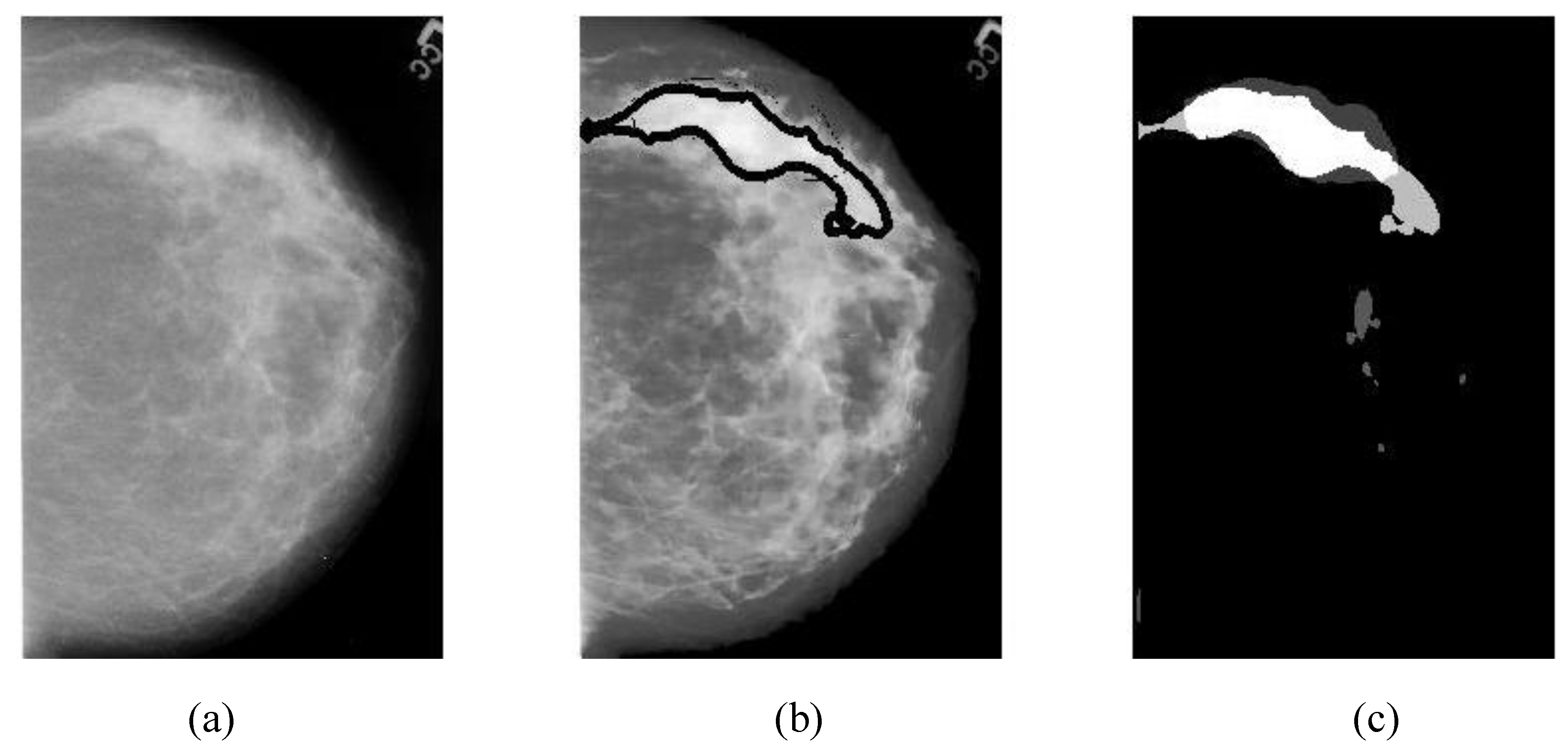 Are certainly images of segmental breast calcifications something is