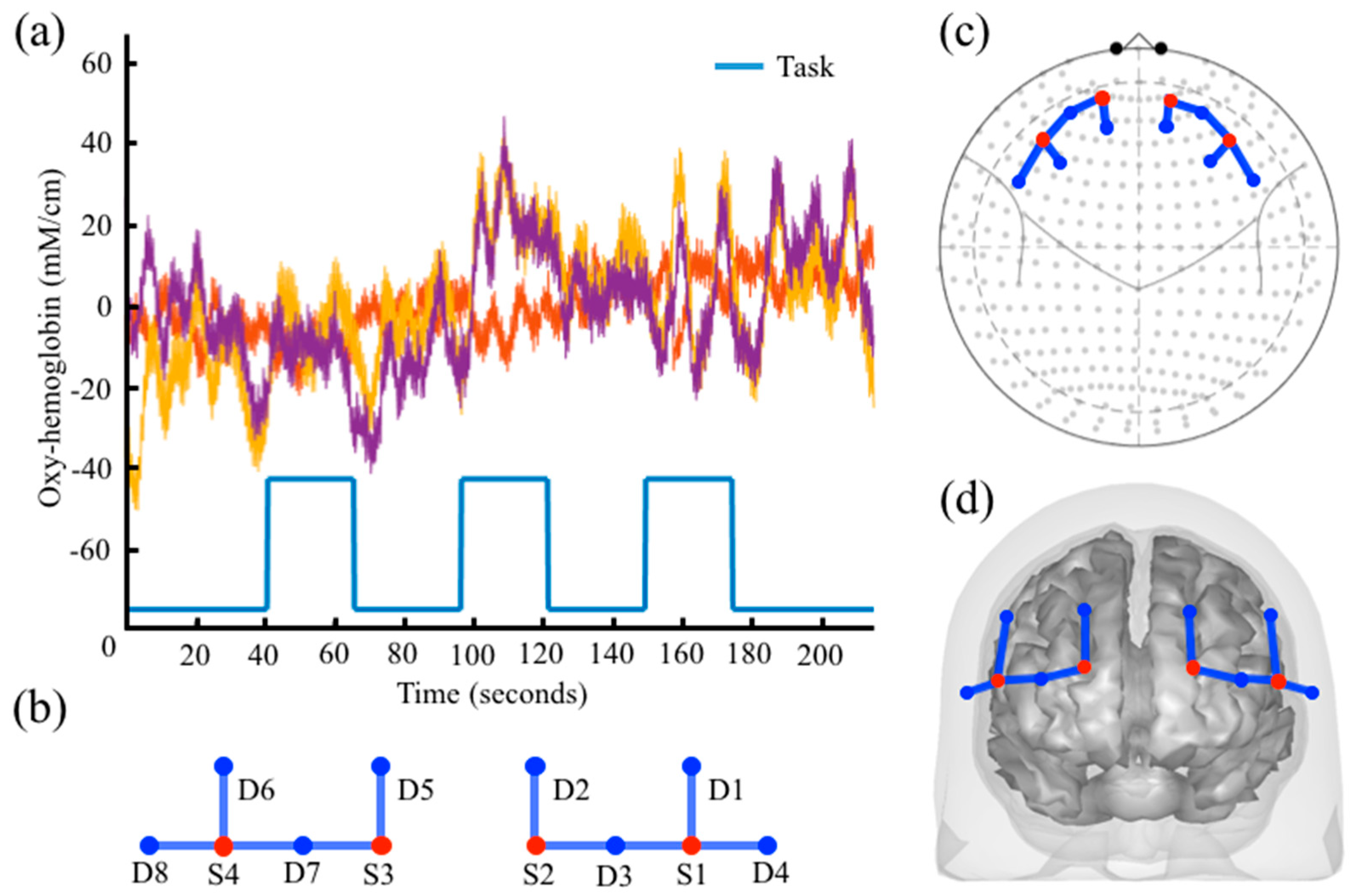 Algorithms | Free Full-Text | The NIRS Brain AnalyzIR