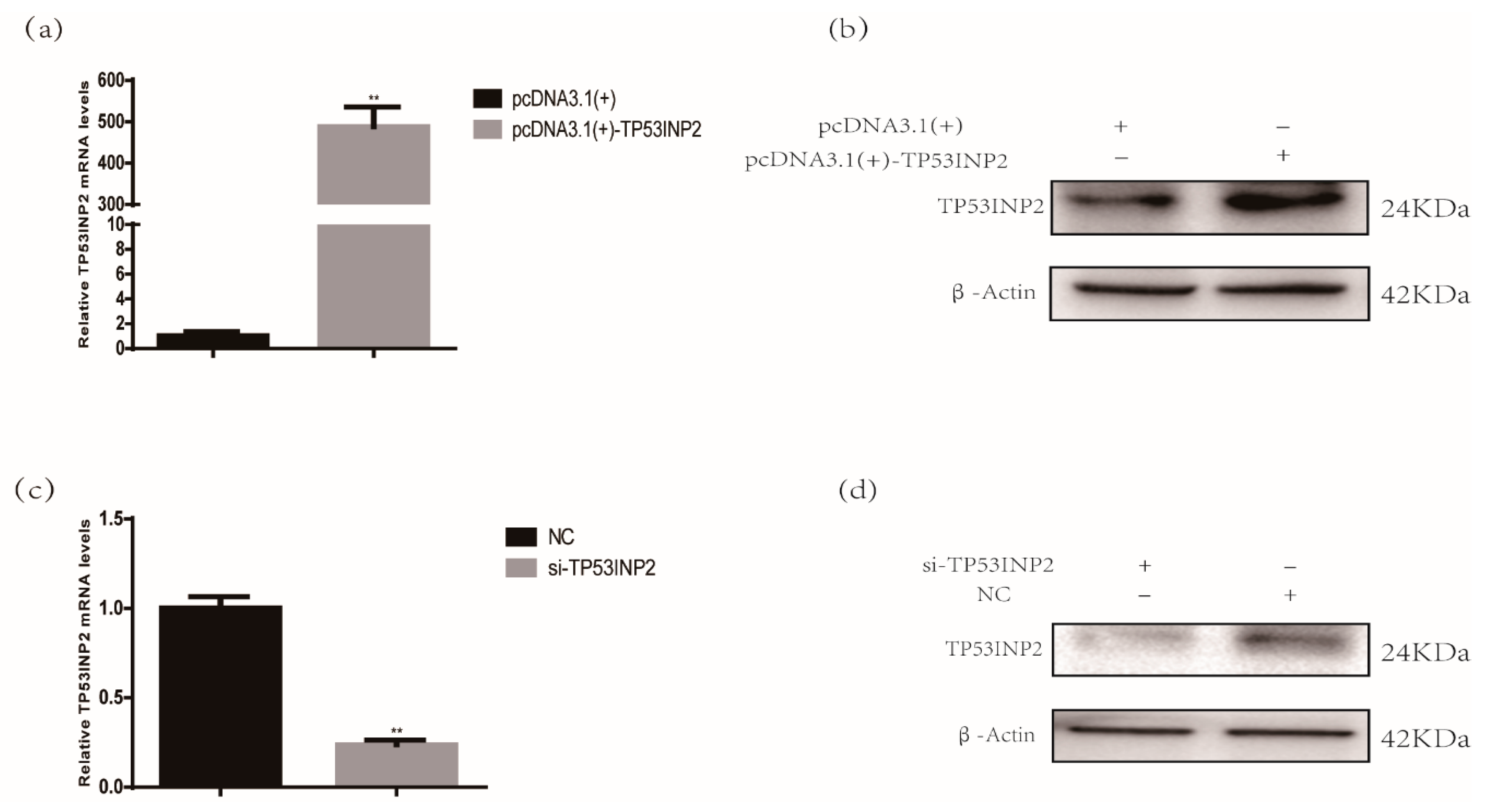 Animals Free Full Text Tp53inp2 Promotes Bovine Adipocytes
