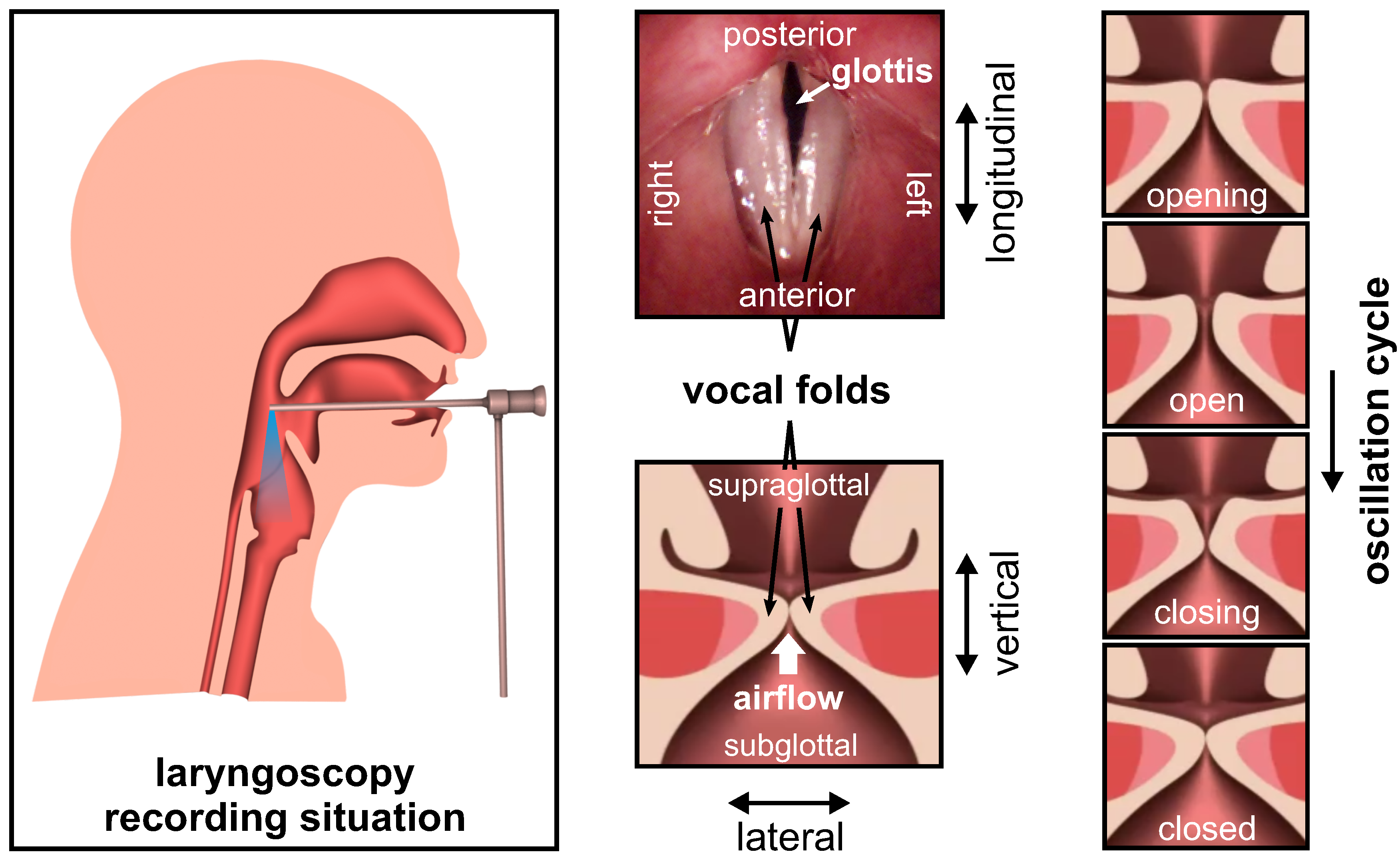 Applied Sciences | Free Full-Text | Endoscopic Laser-Based 3D ...
