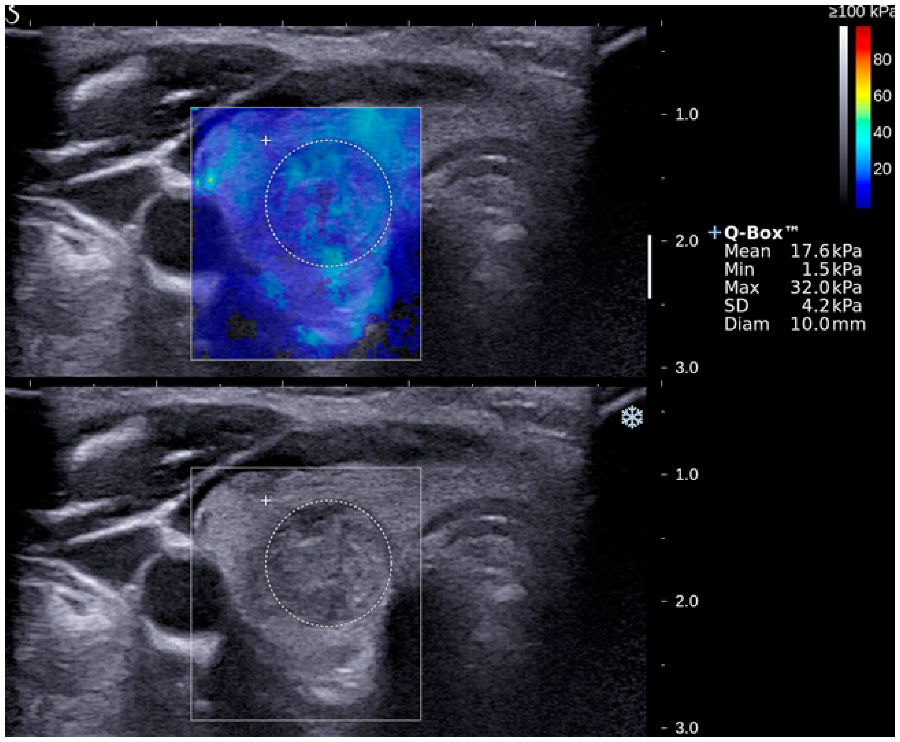 Applied Sciences | Free Full-Text | Shear Wave Elastography