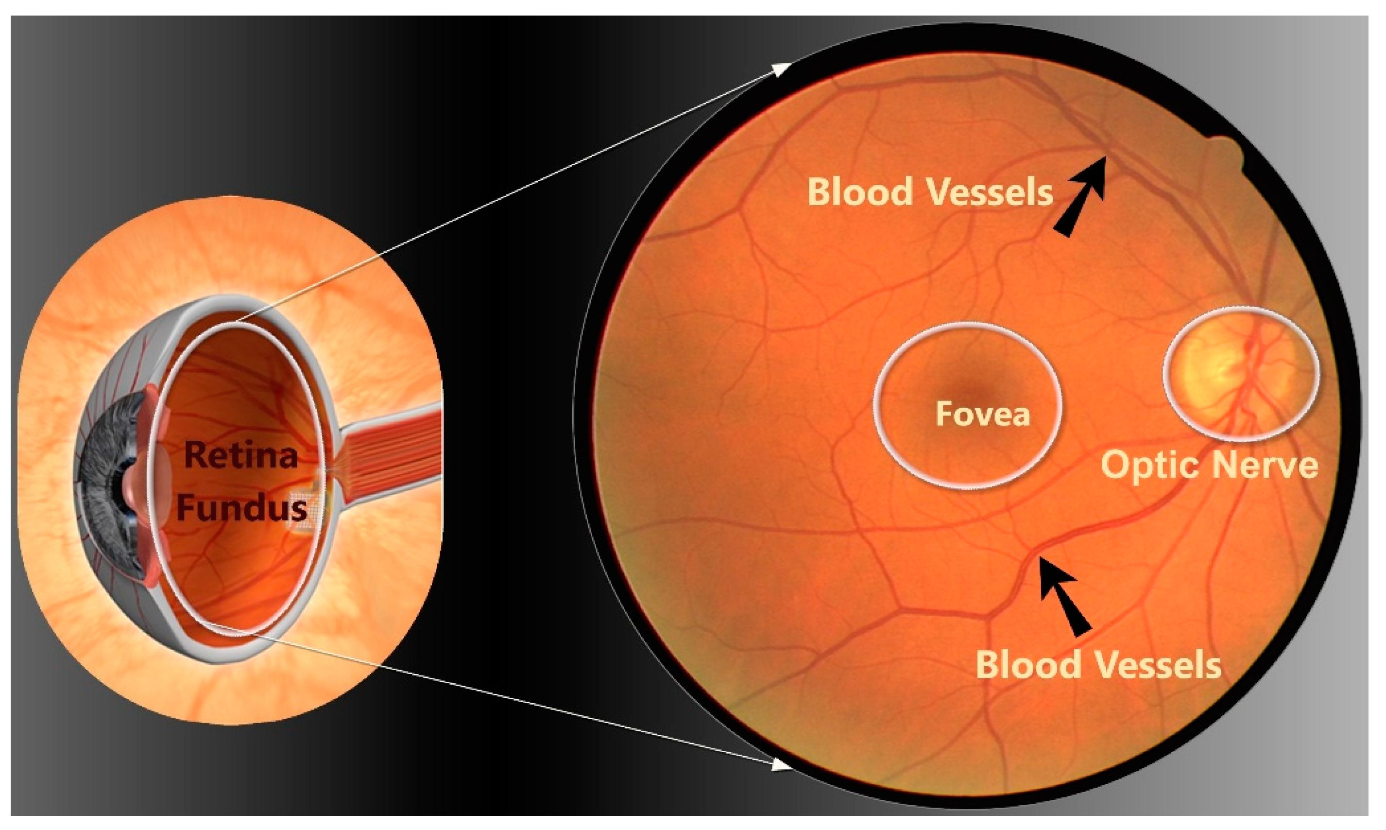 Applied Sciences Free Full Text Retinal Vessels Segmentation