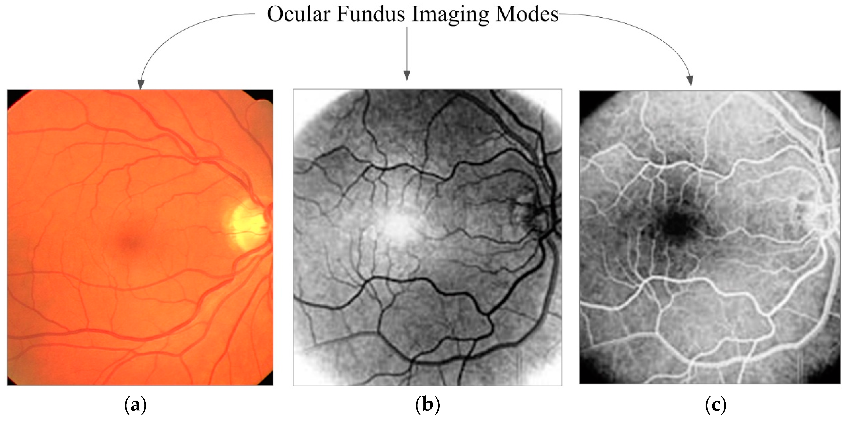 Bildergebnis für fluorescence checking of the retina images images