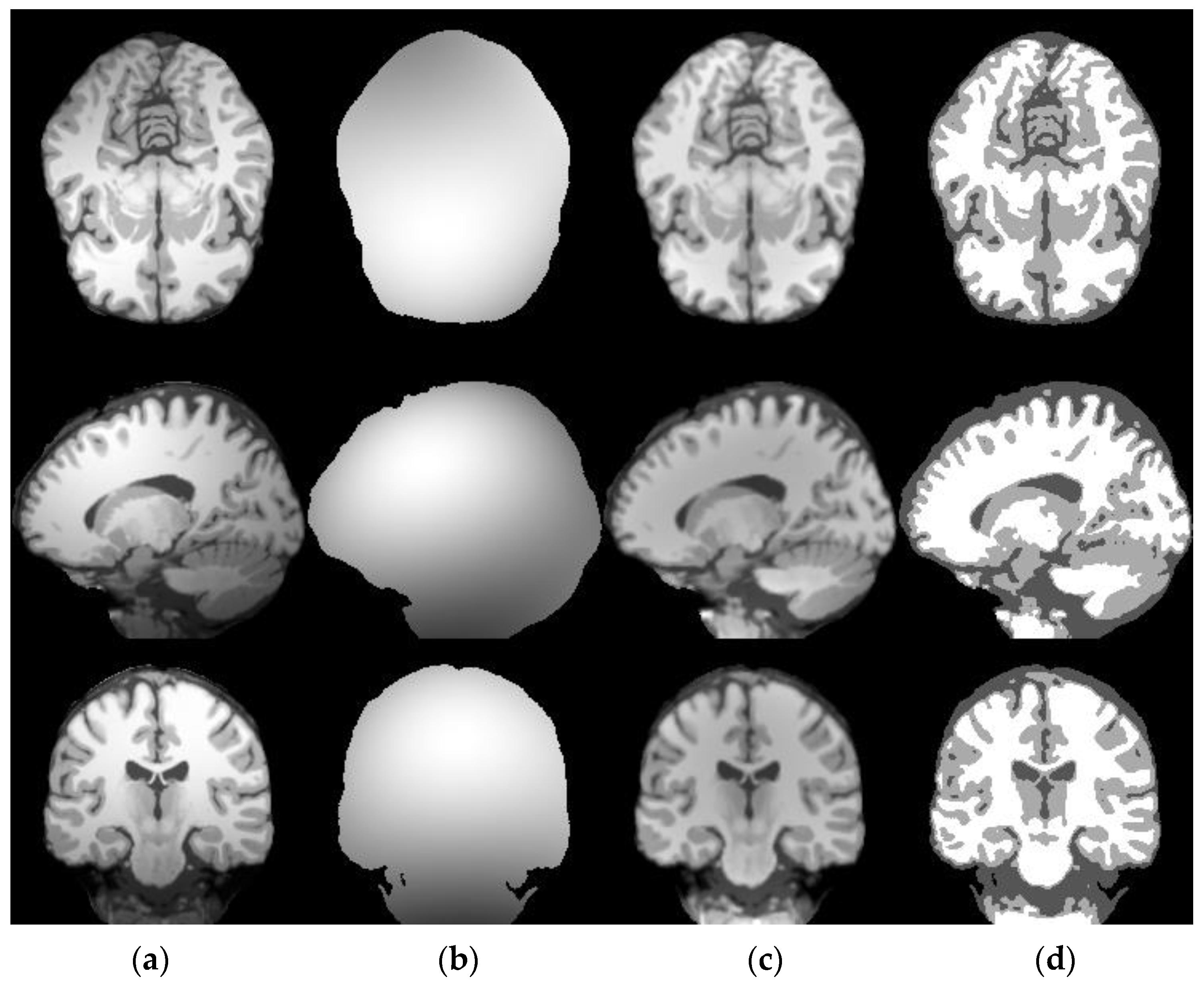 Applied Sciences   Free Full-Text   A Robust Brain MRI
