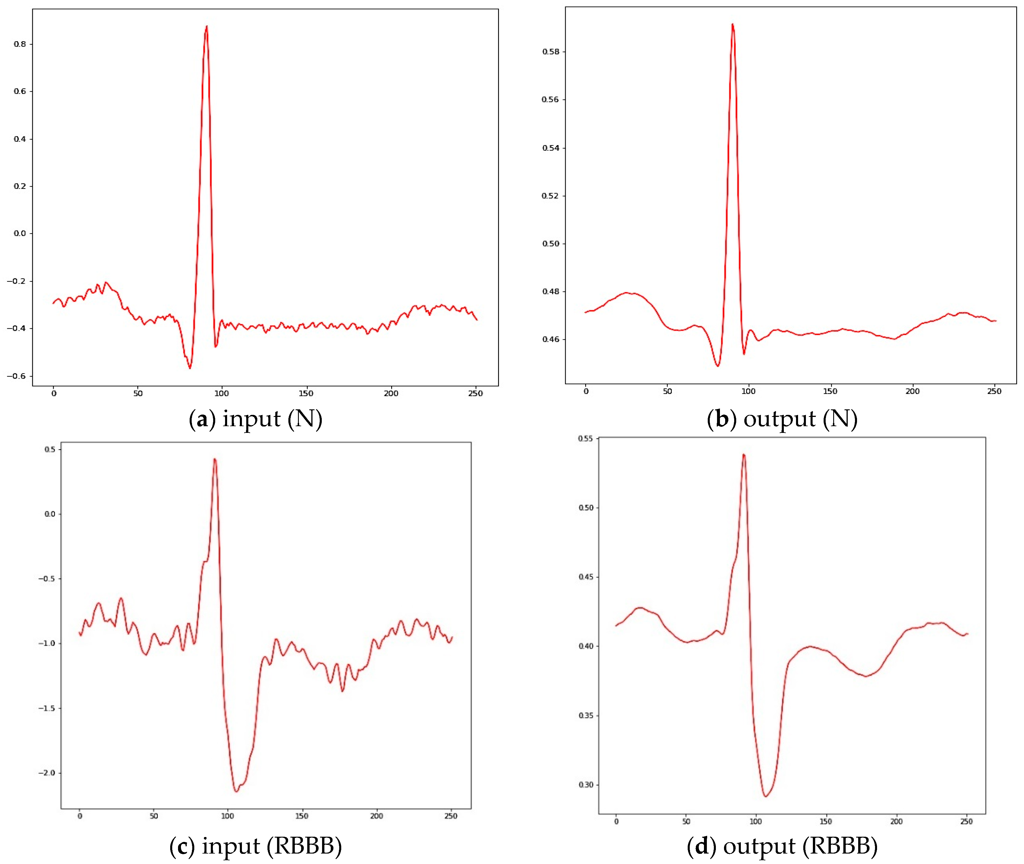 Applied Sciences | Free Full-Text | An Automated ECG Beat