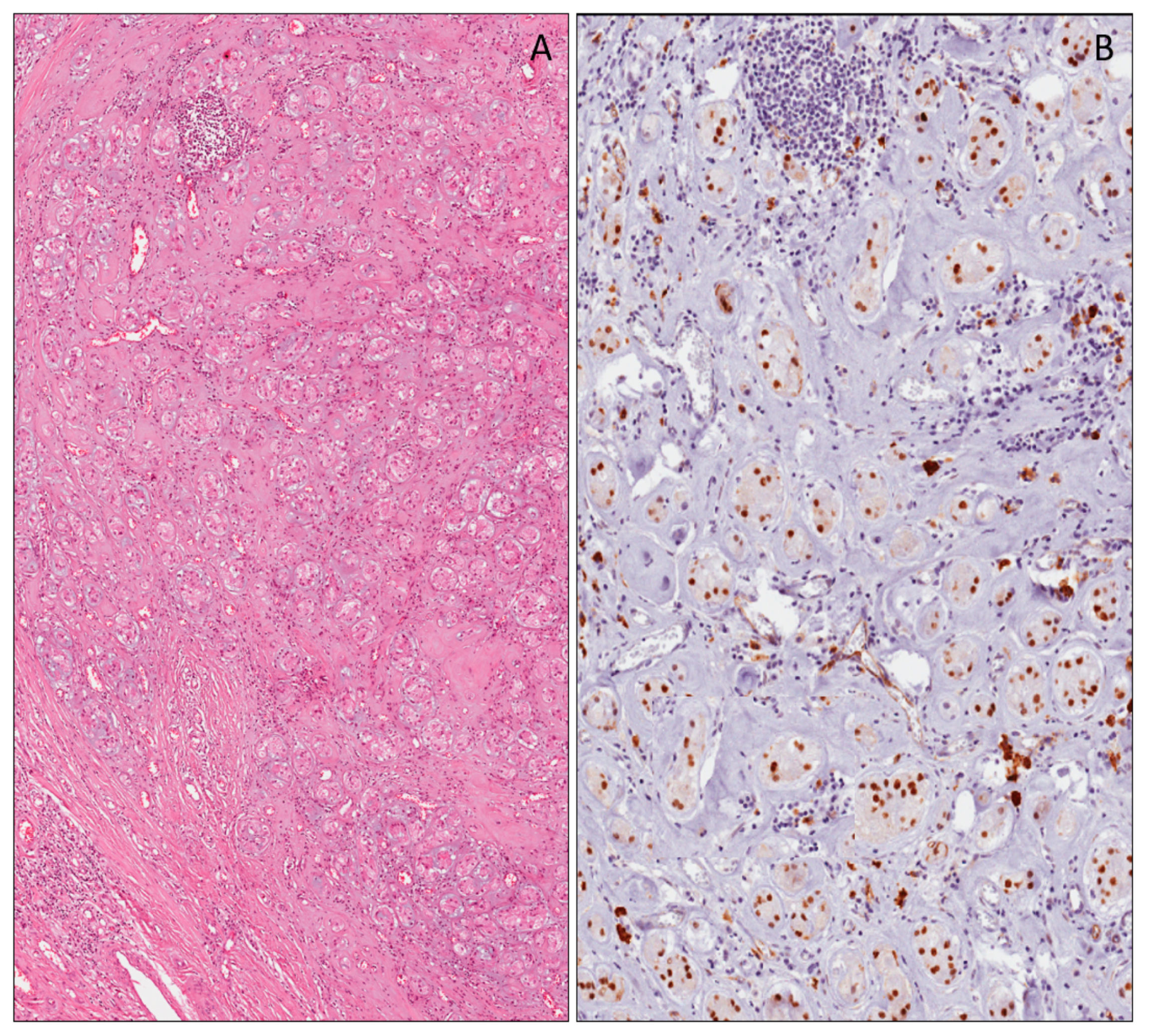 Applied Sciences Free Full Text Immunohistochemical Expression Of Wilms Tumor 1 Protein In Human Tissues From Ontogenesis To Neoplastic Tissues Html