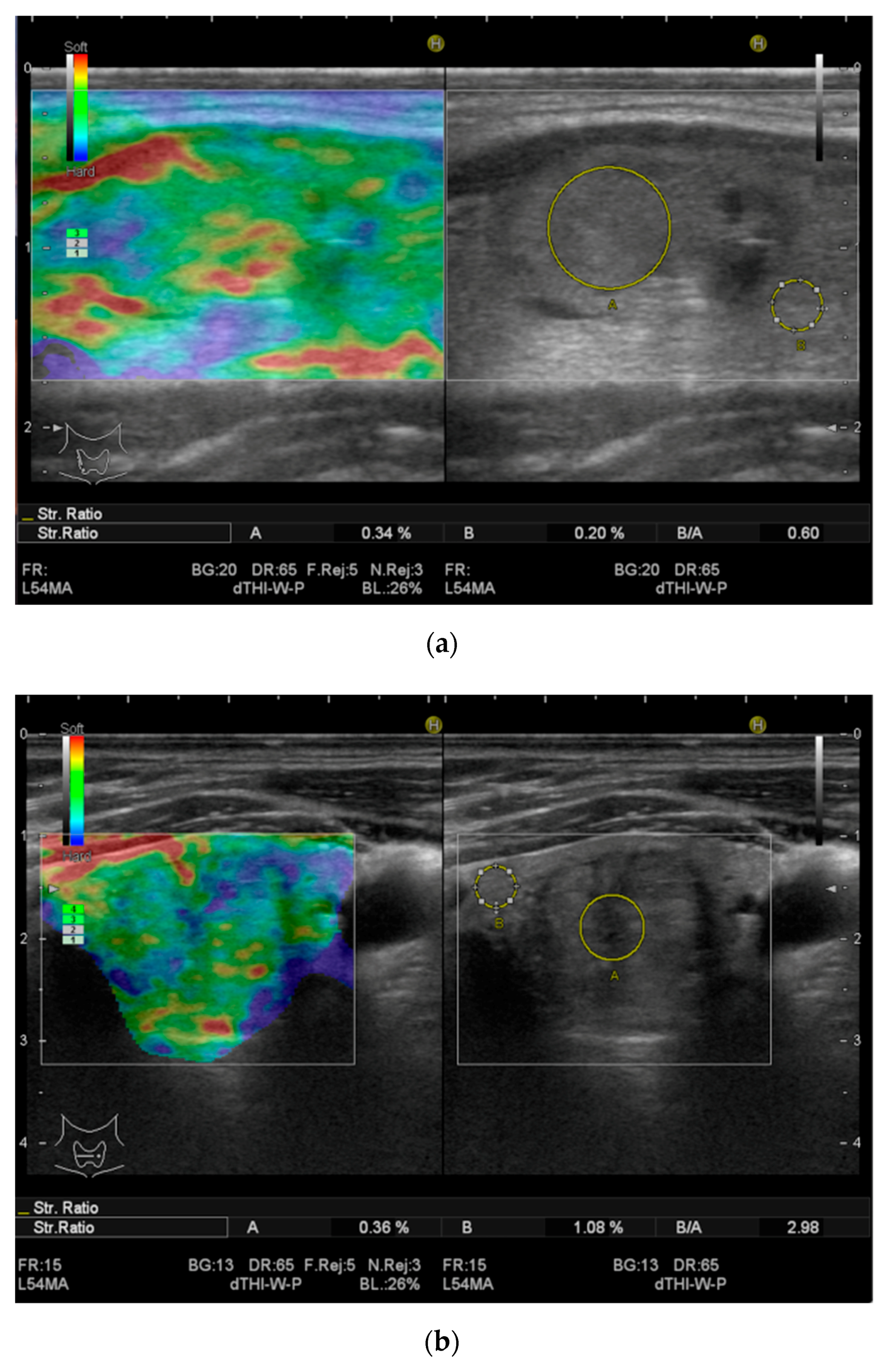 Applied Sciences Free Full Text Thyroid Multimodal Ultrasound