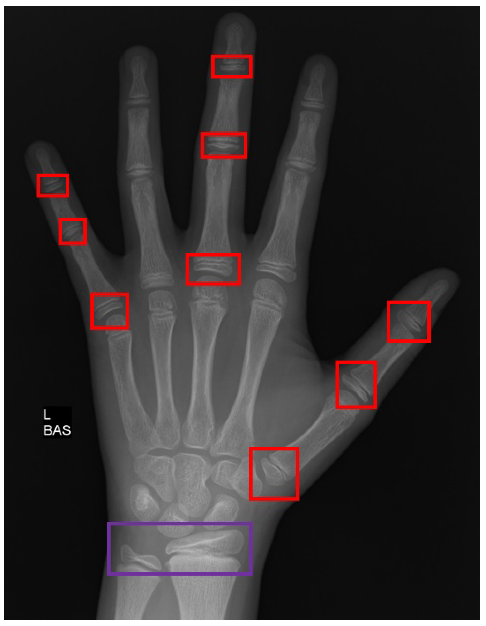 Applied Sciences Free Full Text Automated Bone Age Assessment With Image Registration Using Hand X Ray Images Please remember to share it with your friends if you like. automated bone age assessment