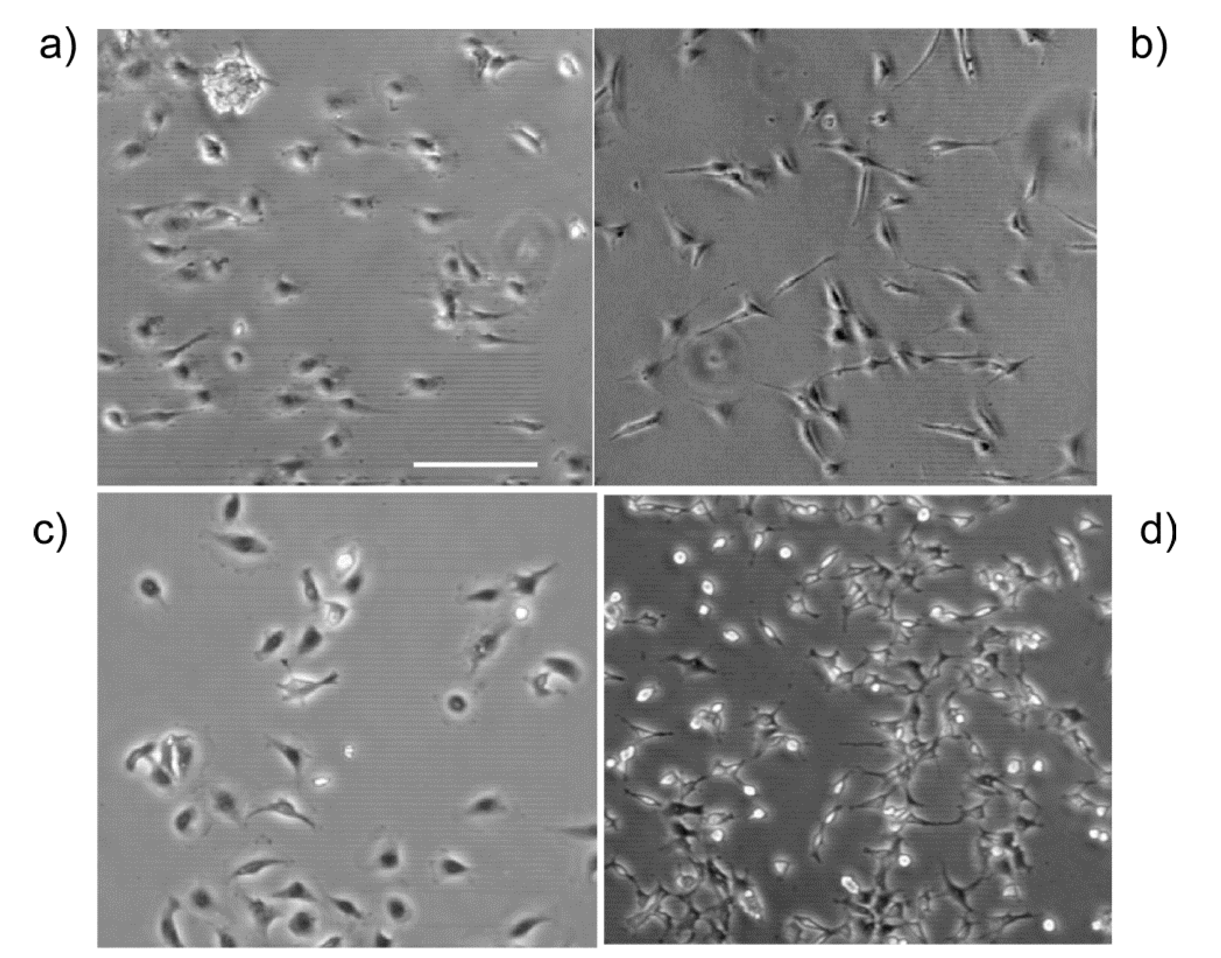 Bioengineering | Free Full-Text | Ovarian Cancer Cell