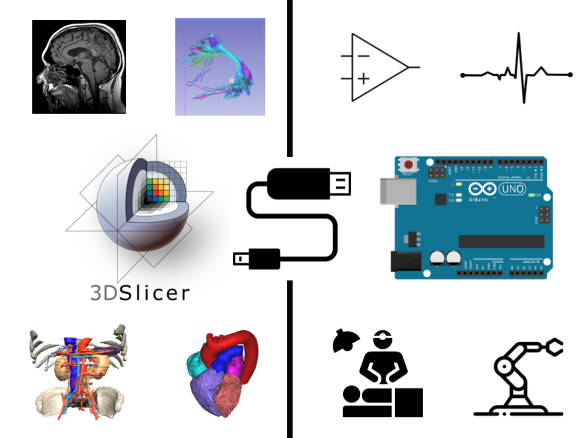 SlicerArduino graphical abstract