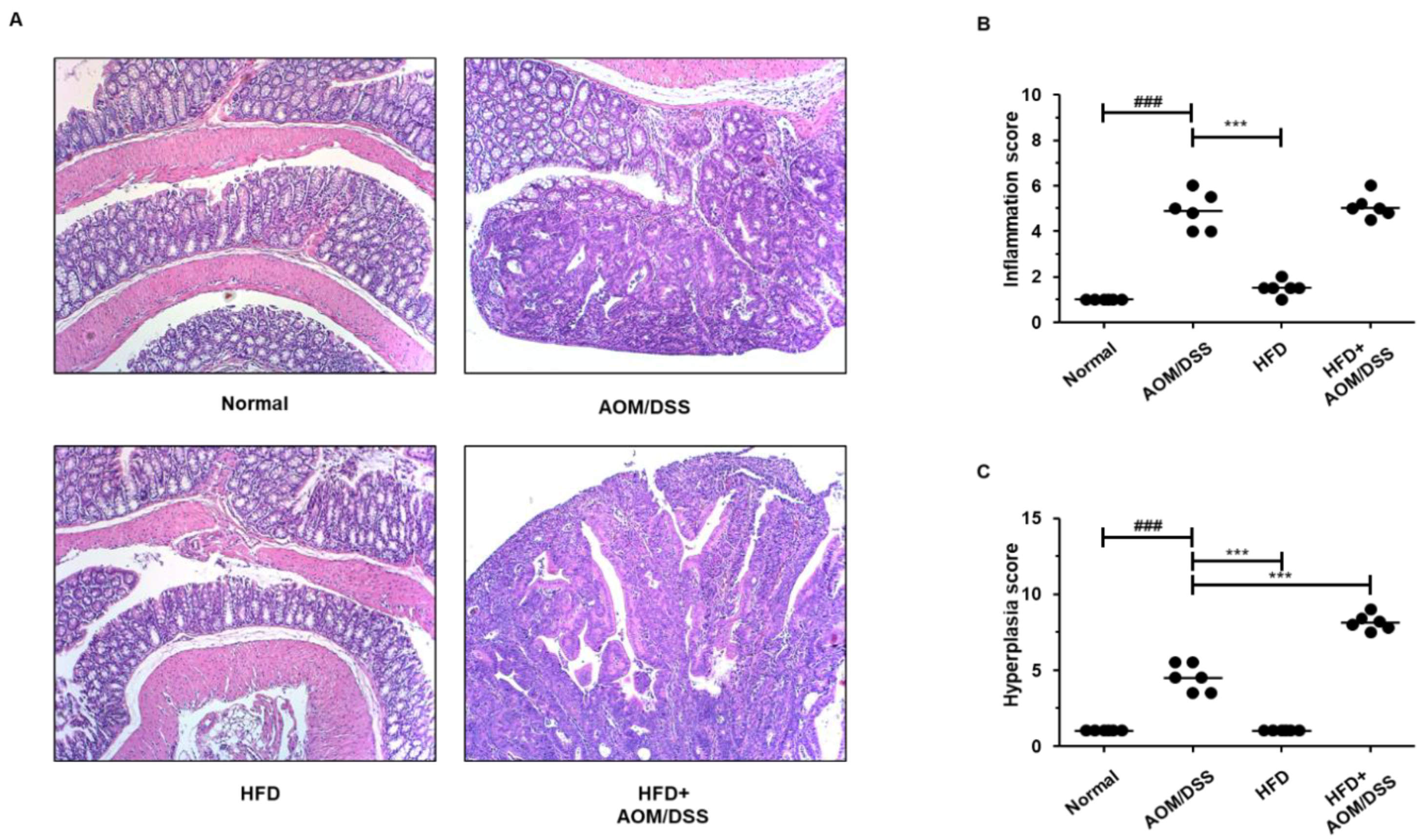 Biology Free Full Text High Fat Diet Propelled Aom Dss Induced Colitis Associated Colon Cancer Alleviated By Administration Of Aster Glehni Via Stat3 Signaling Pathway Html