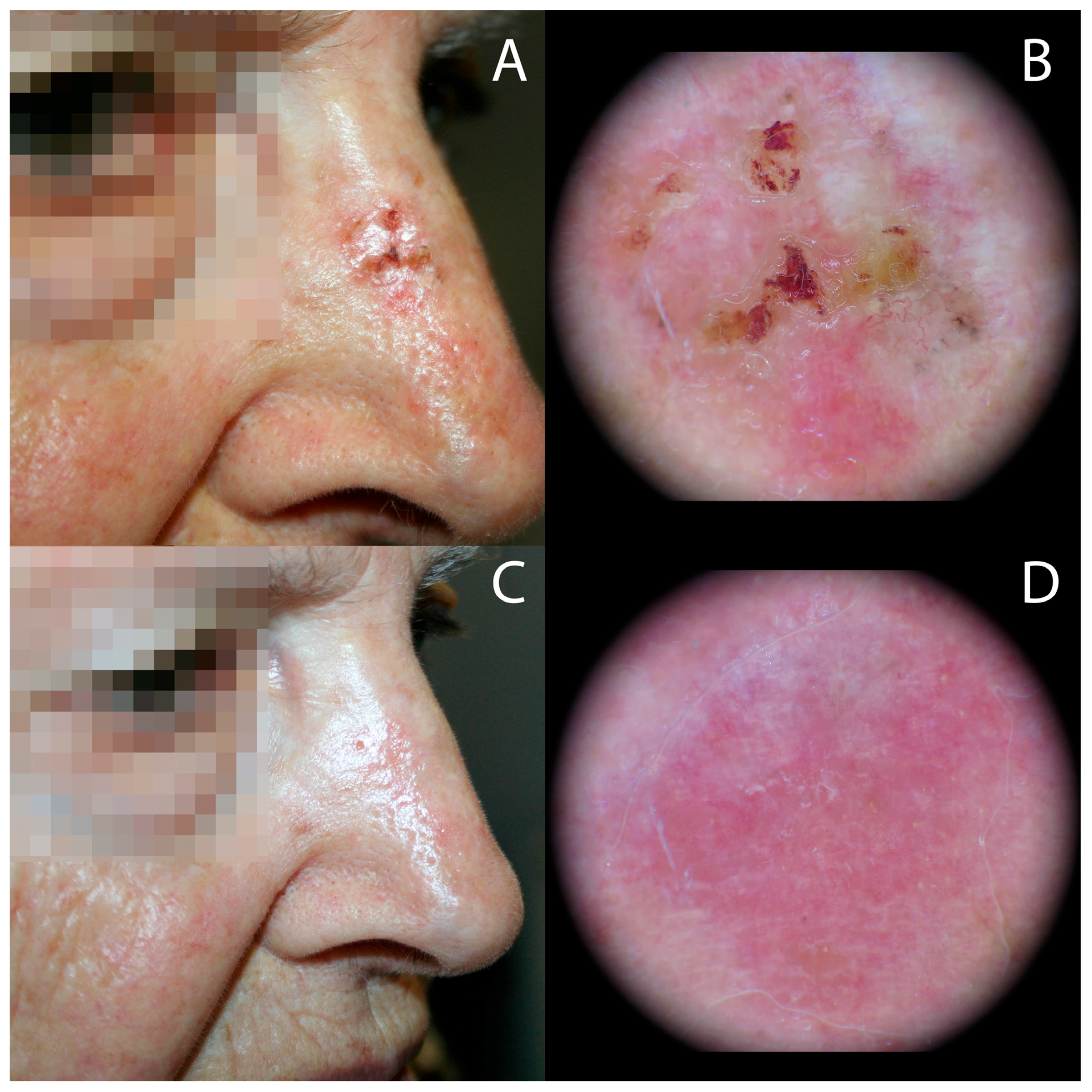 Biomedicines Free Full Text Photodynamic Therapy
