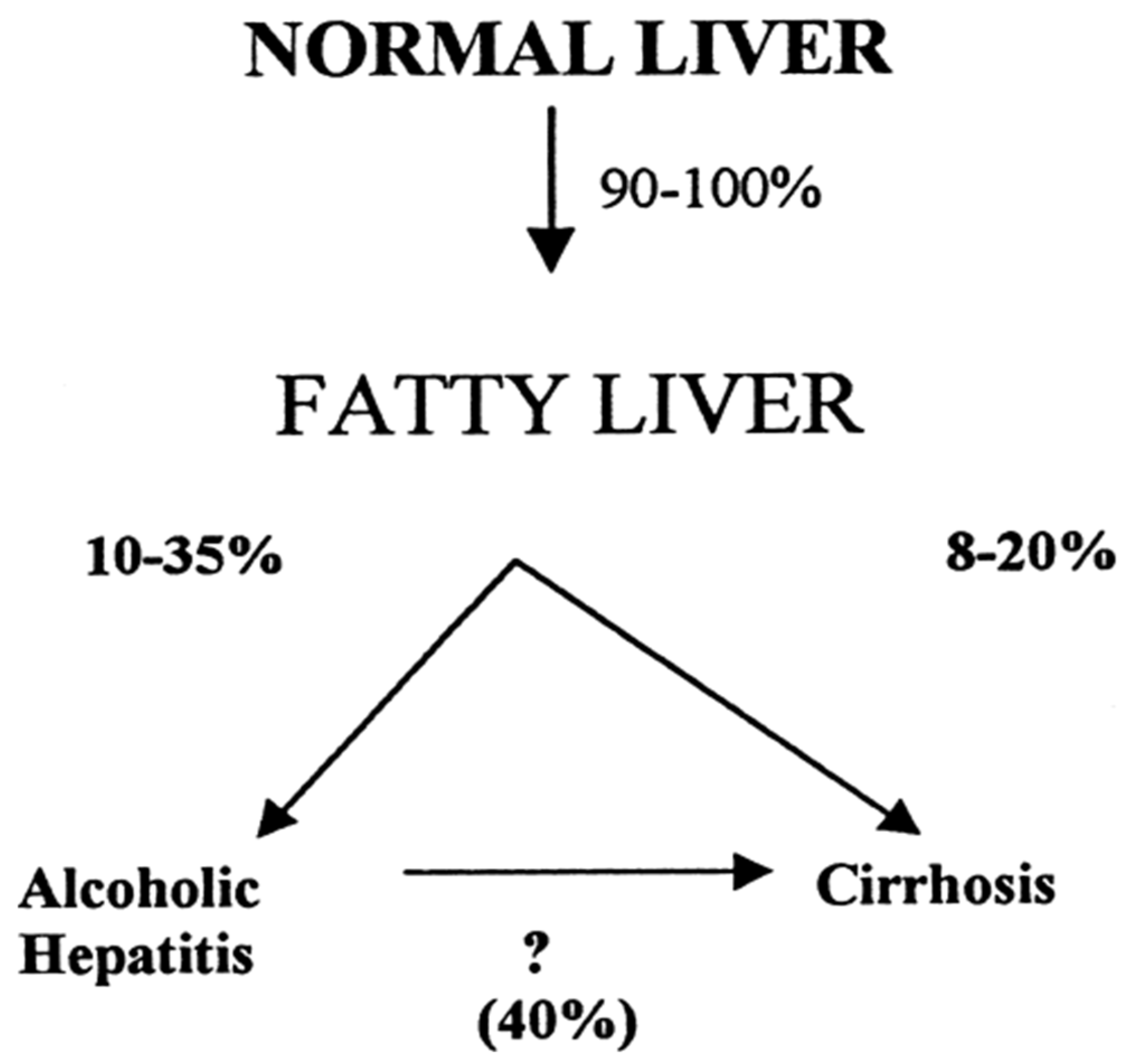 Biomedicines | Free Full-Text | Alcoholic Liver Disease