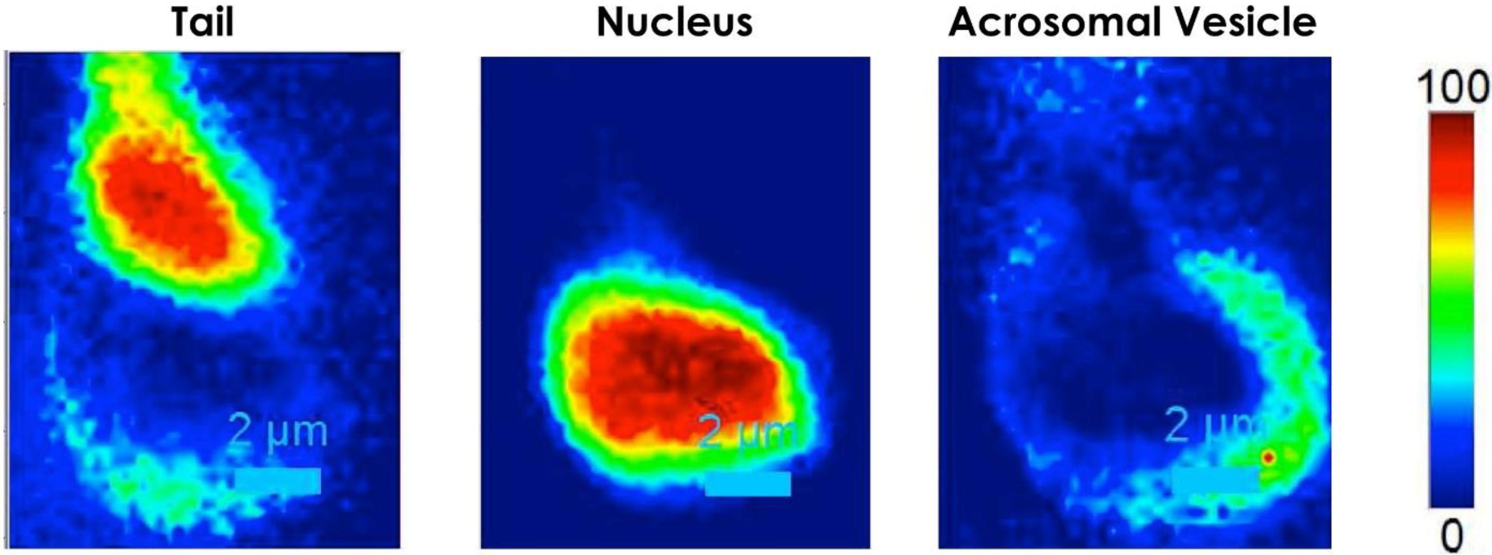 biochemical parameters of sperm flagellar motility Motility testing biochemical parameters of sperm flagellar motility initiation and regulationbiochemical parameters of sperm flagellar motility initiation and.
