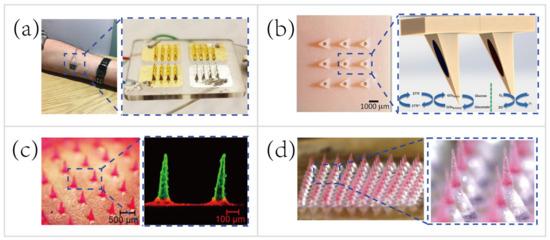 Biosensors 10 00205 g011 550