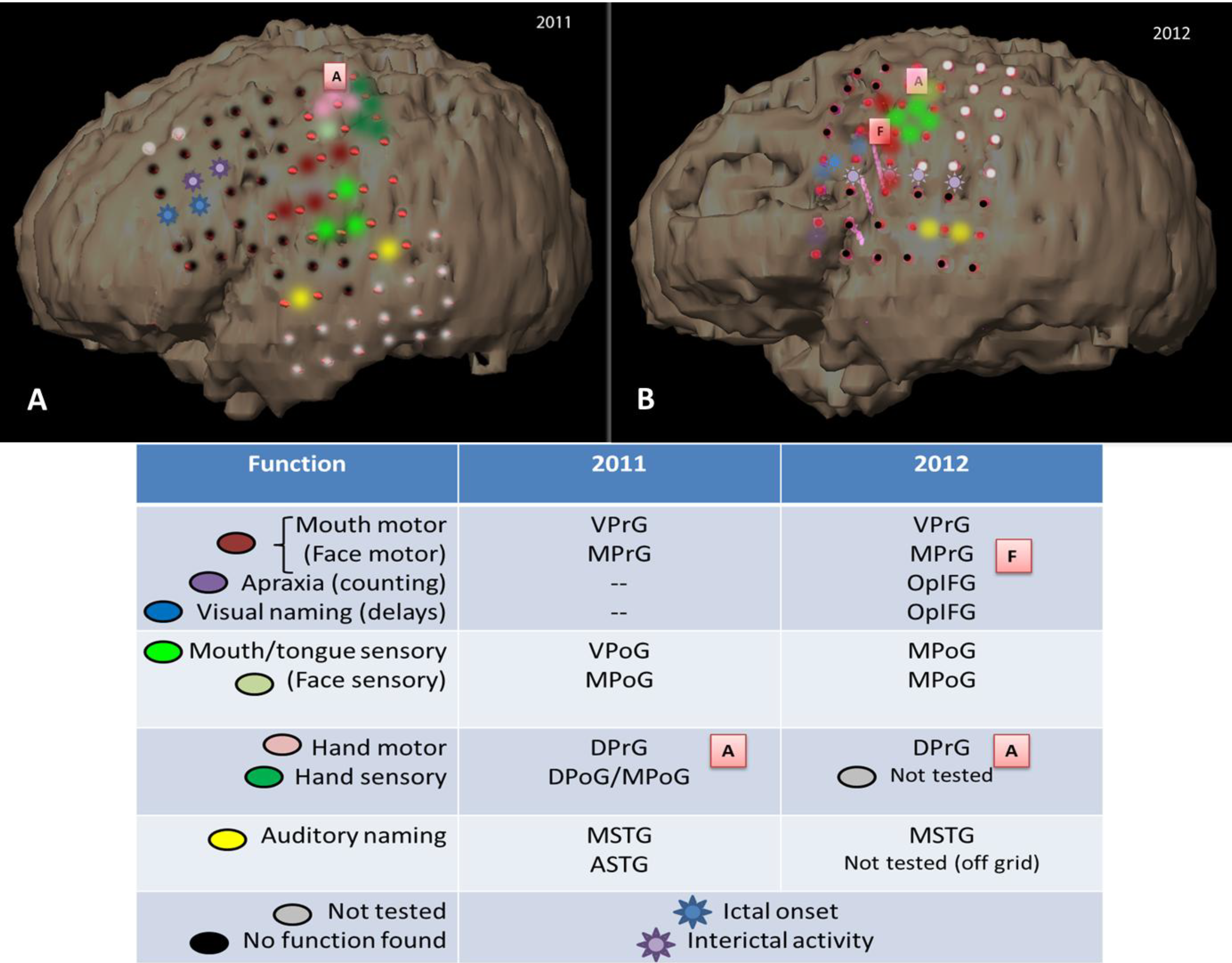 Brain Sciences | Free Full-Text | Reorganization and