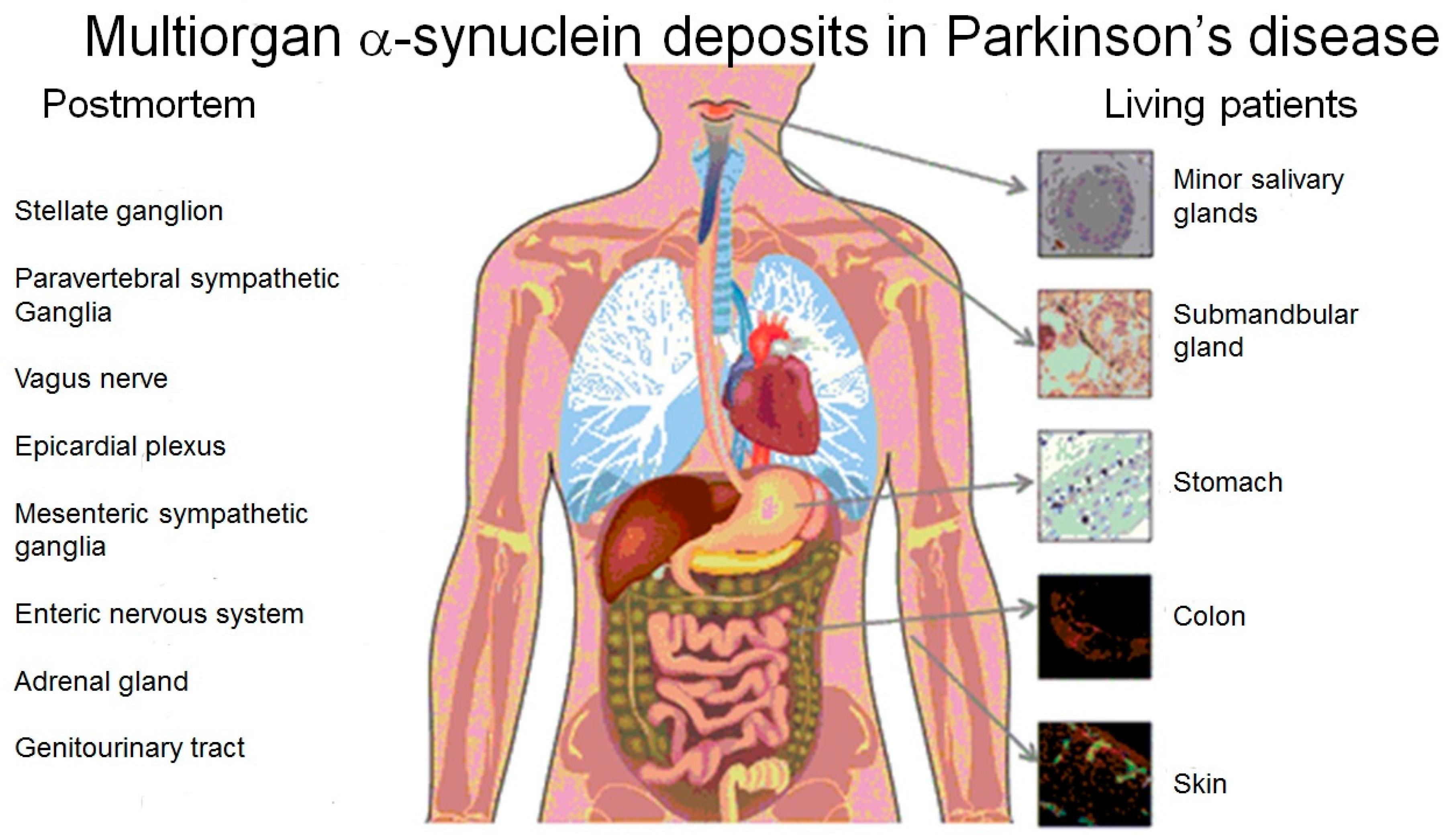 Brain Sciences | Free Full-Text | Parkinson\'s Disease: Assay of ...