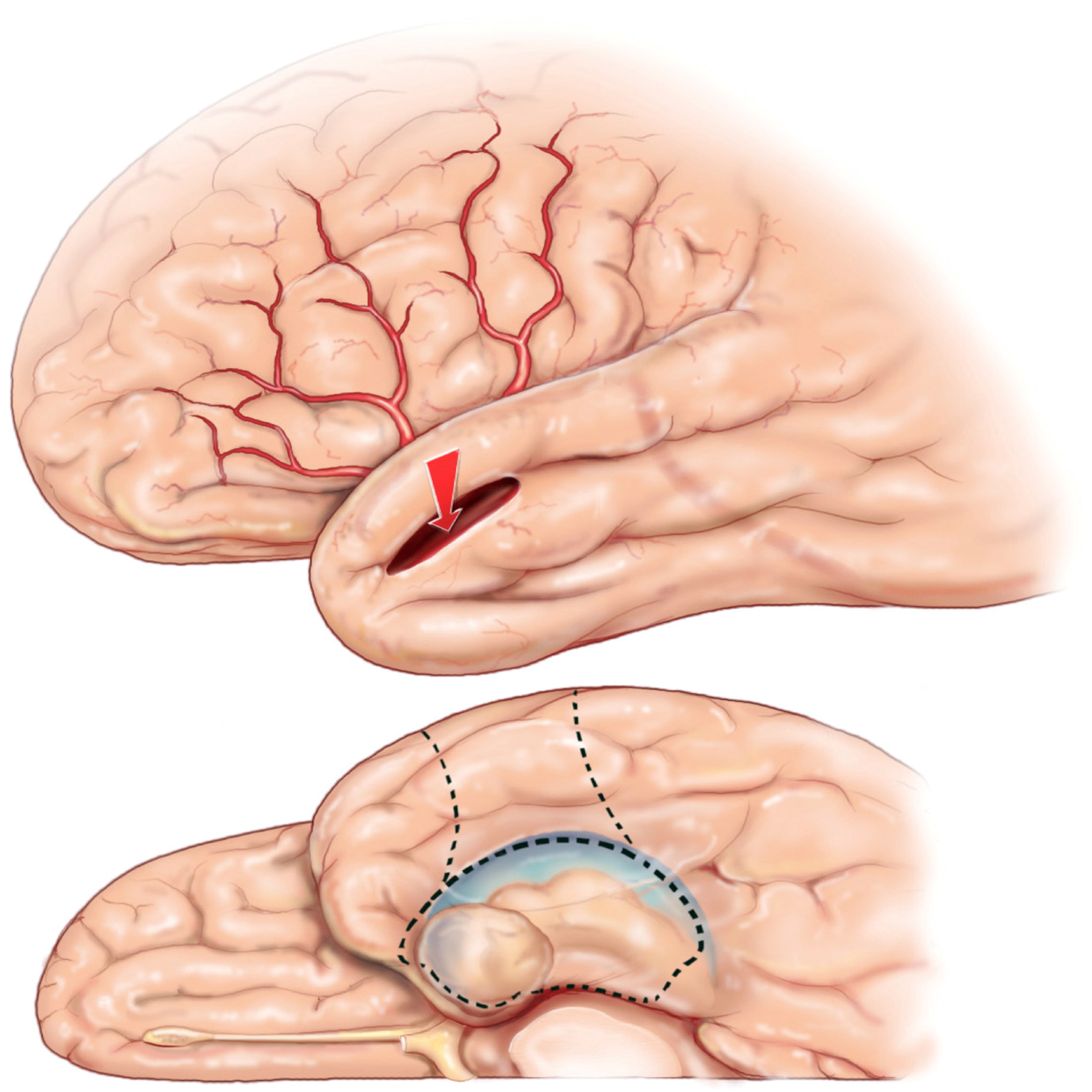 Brain Sciences   Free Full-Text   Surgical Considerations of ...