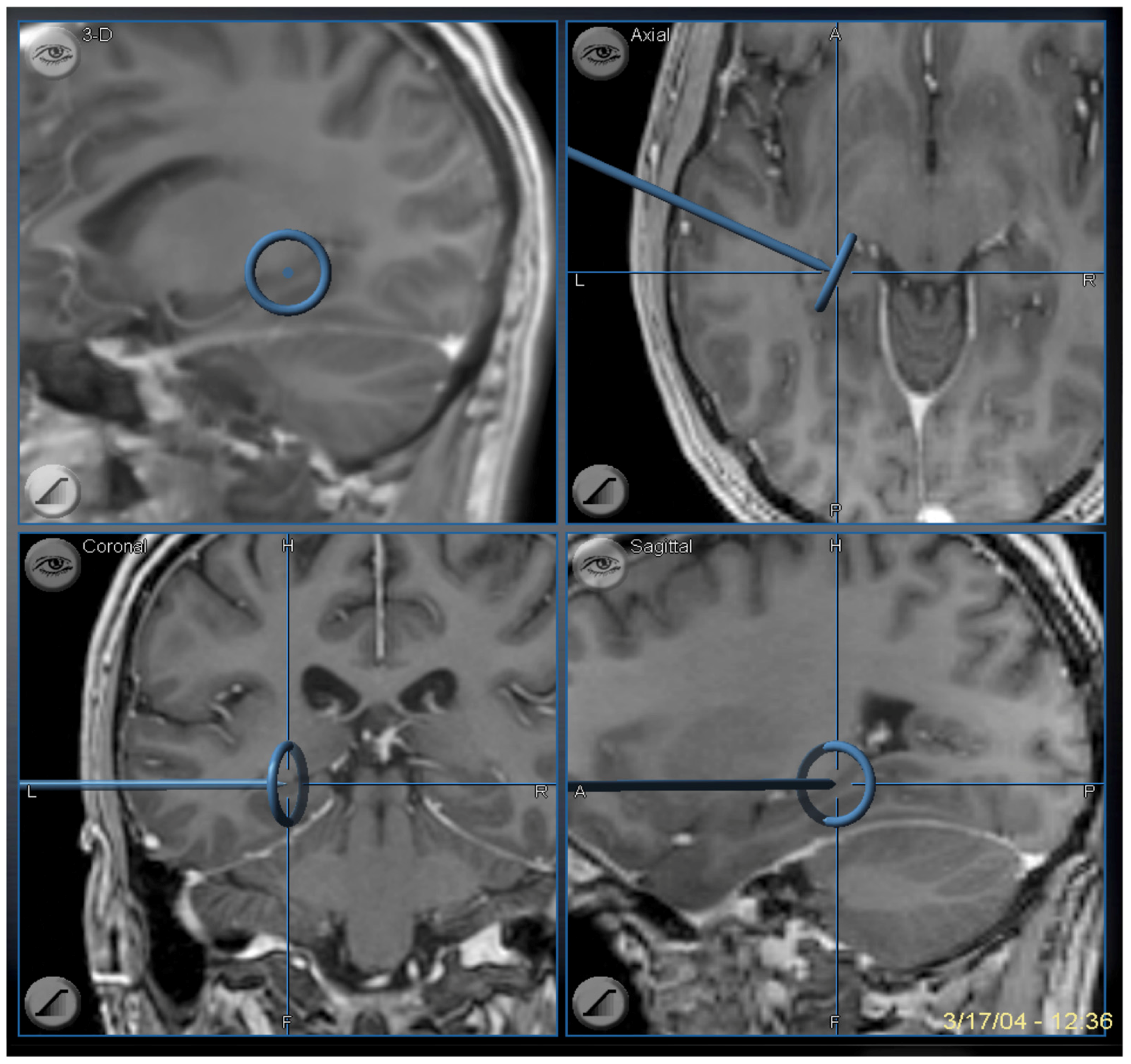 Brain Sciences Free Full Text Surgical Considerations Of