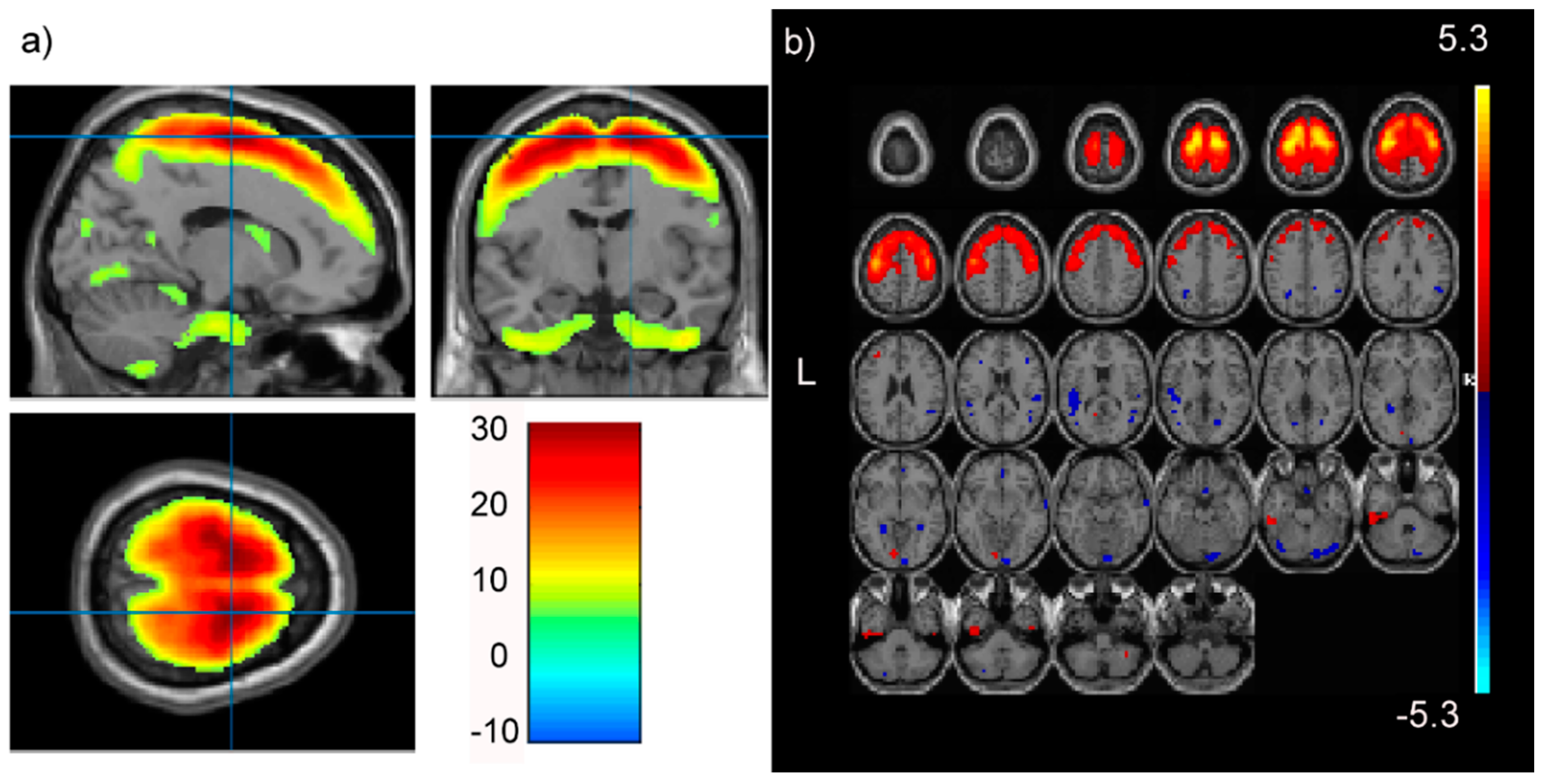 Brain Sciences | Free Full-Text | High and Low Levels of an