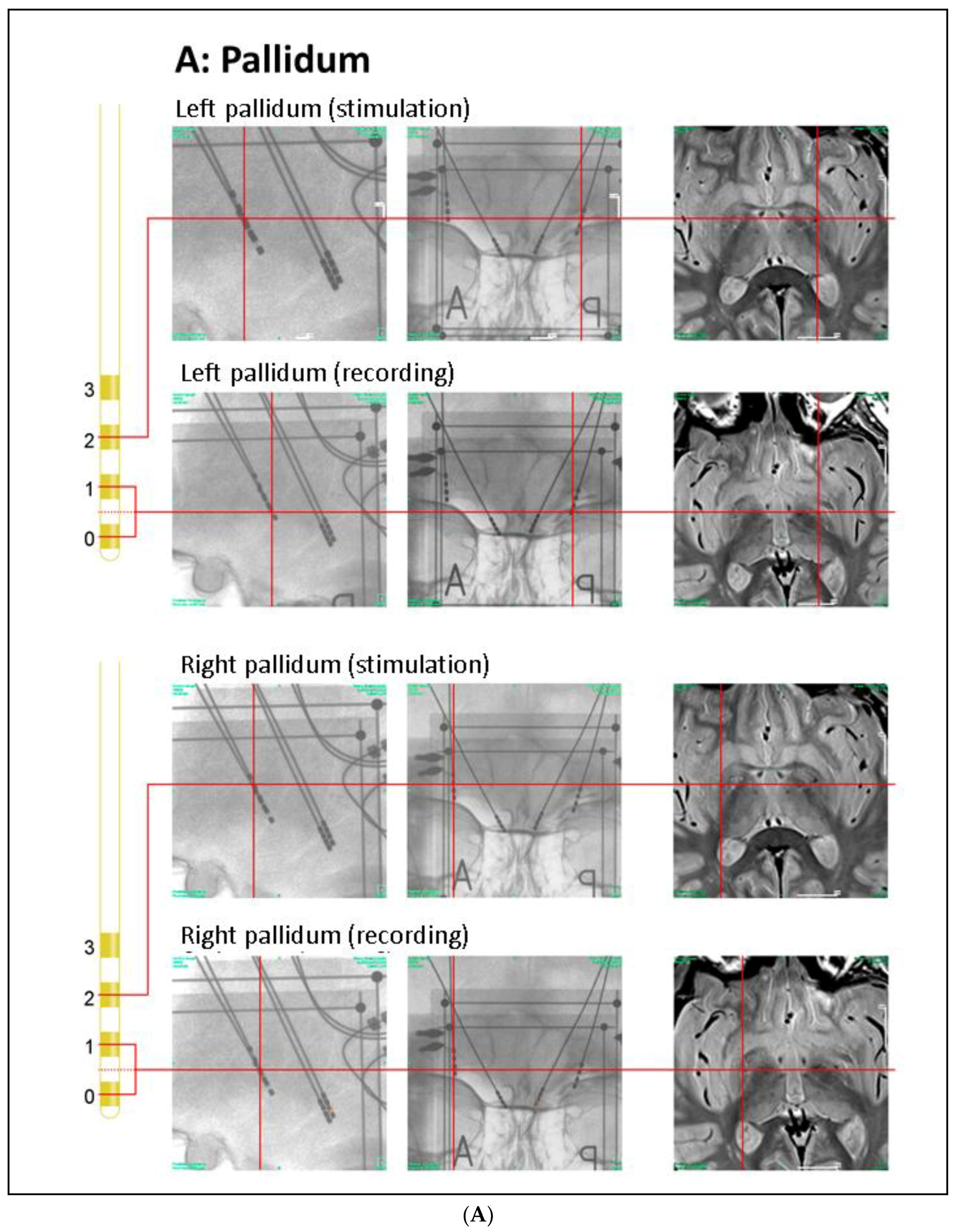 Brain Sciences | Free Full-Text | Pallidal Stimulation