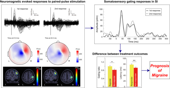 Somatosensory Gating Responses Are Associated with Prognosis in Patients with Migraine