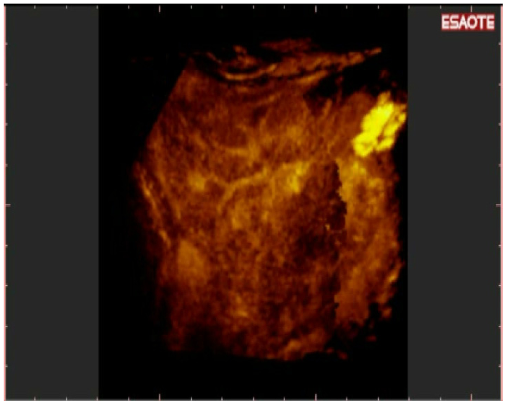 Online free breast ultrasound ceu