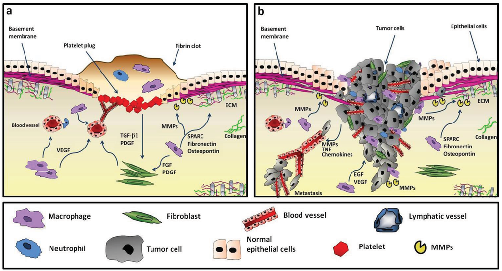 Cancers Free Full Text Tumor Associated Macrophages As