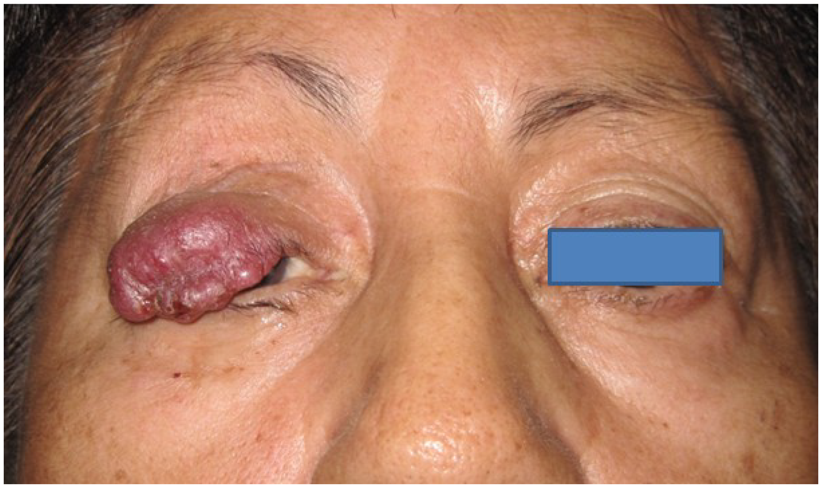 Cancers Free Full Text Merkel Cell Carcinoma Of The Eyelid And Periocular Region Html