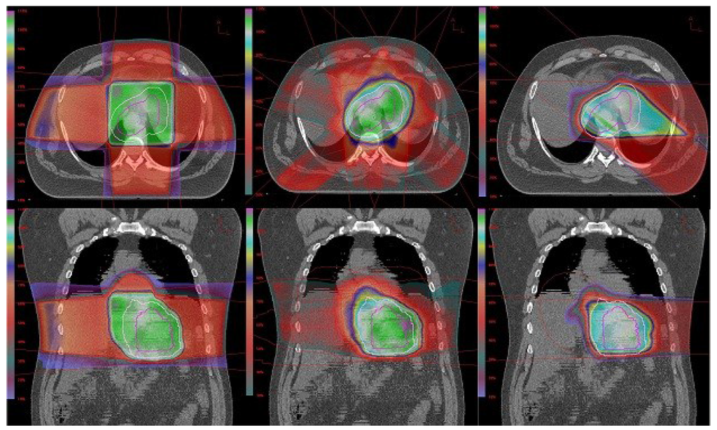 Cancers Special Issue Proton Therapy For Cancer