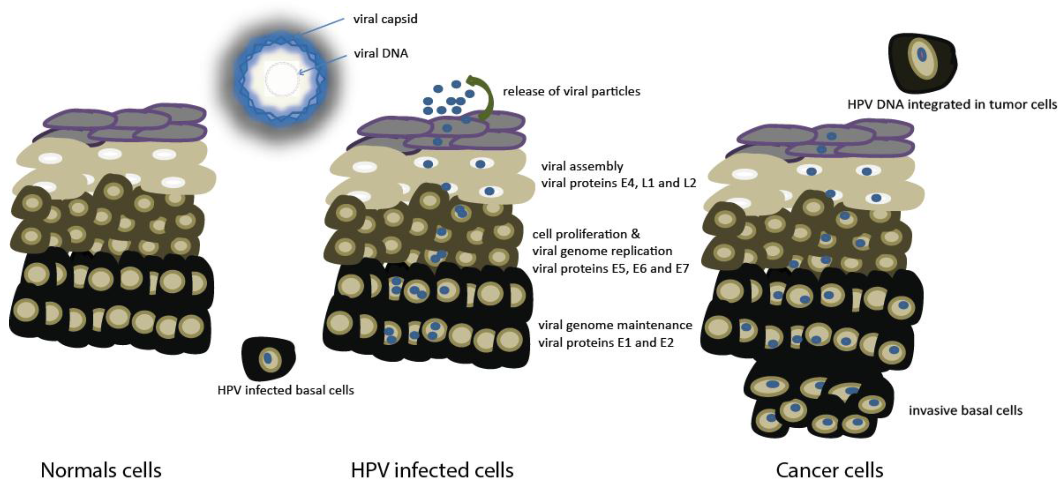 Cancers | Free Full-Text | HPV Positive Head and Neck Cancers
