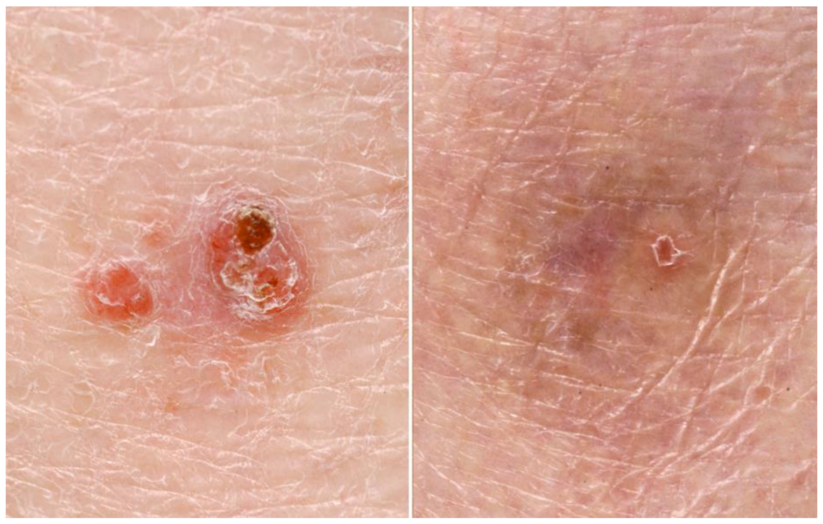 Cancers | Free Full-Text | Photodynamic Therapy and Non-Melanoma Skin Cancer  | HTML