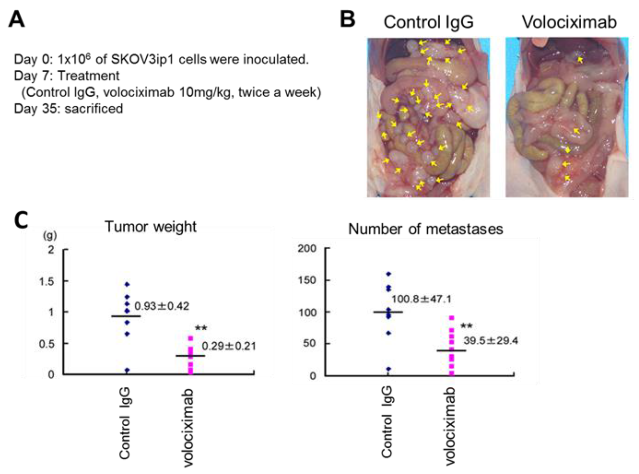 Anti-angiogenic therapy for cancer: current progress, unresolved questions and future directions