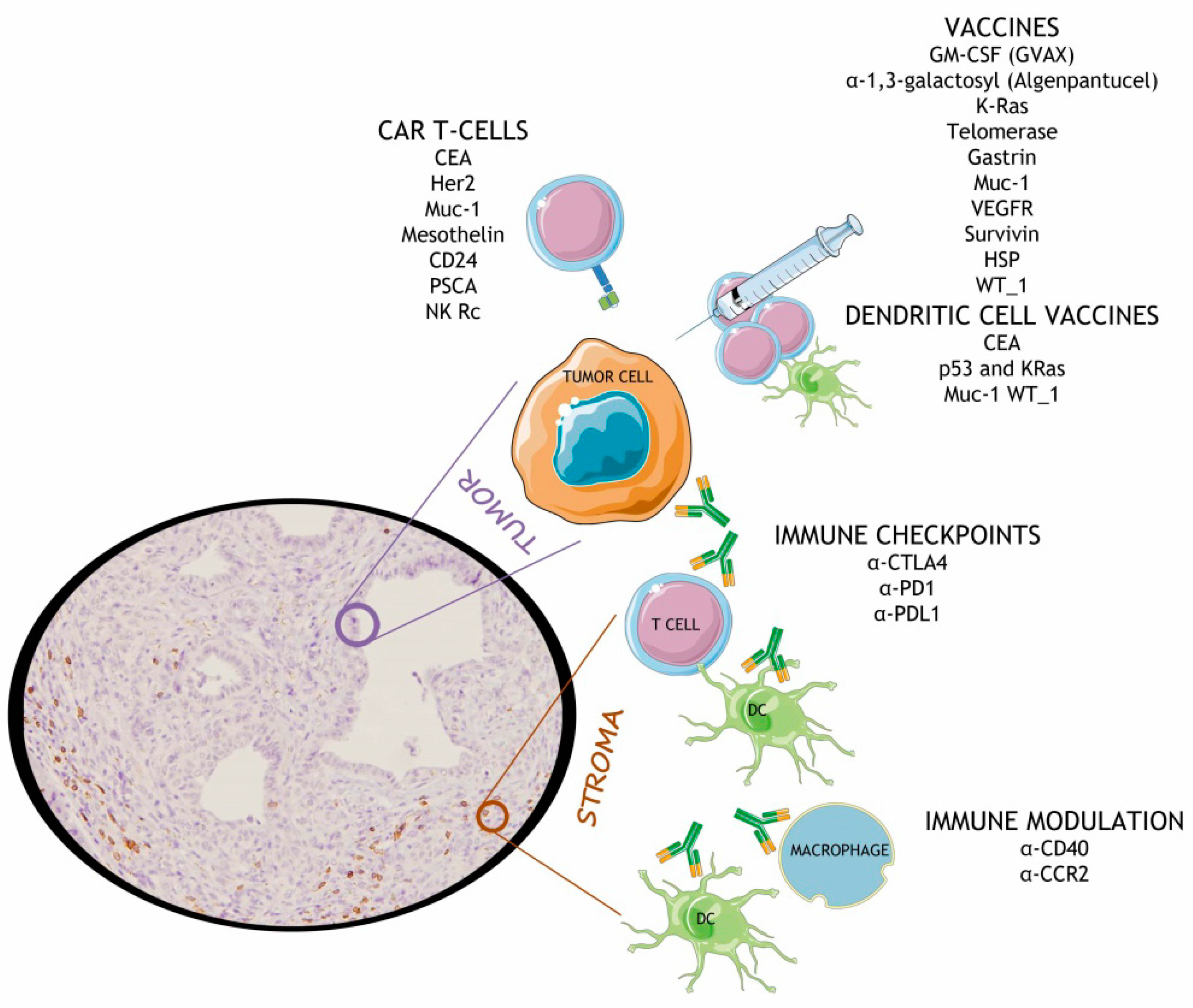 Cancers | Free Full-Text | Immune Evasion in Pancreatic