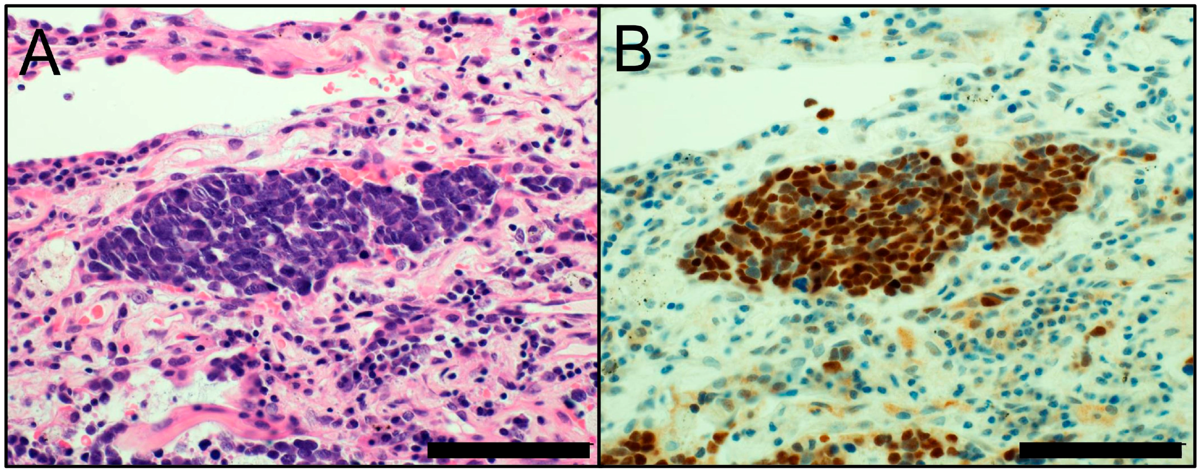 Cancers Free Full Text Update On Immunohistochemistry
