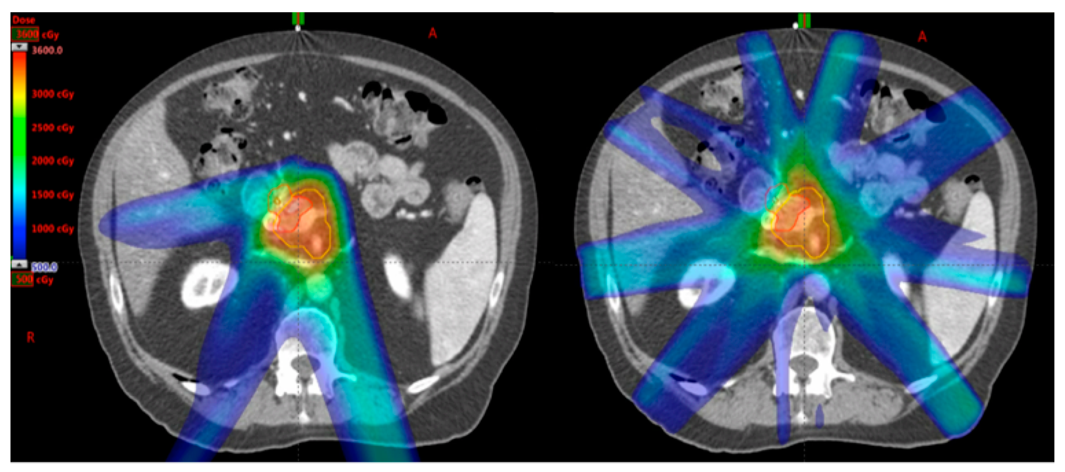 Cancers Free Full Text Stereotactic Radiotherapy And