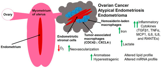 Cancers | Special Issue : The Tumor Microenvironment of High Grade