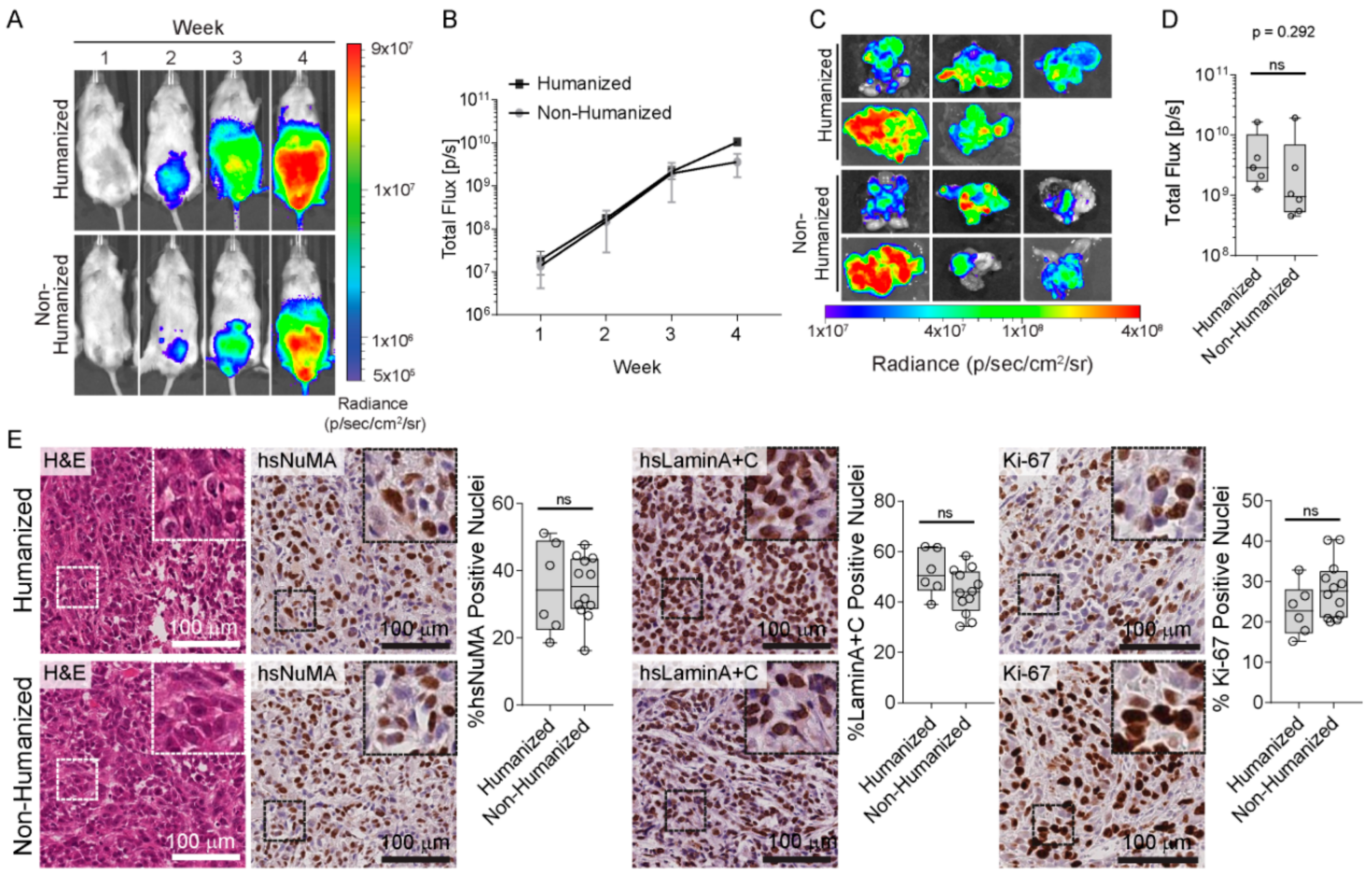 Presence of HO-1-postitive macrophages in the tumor