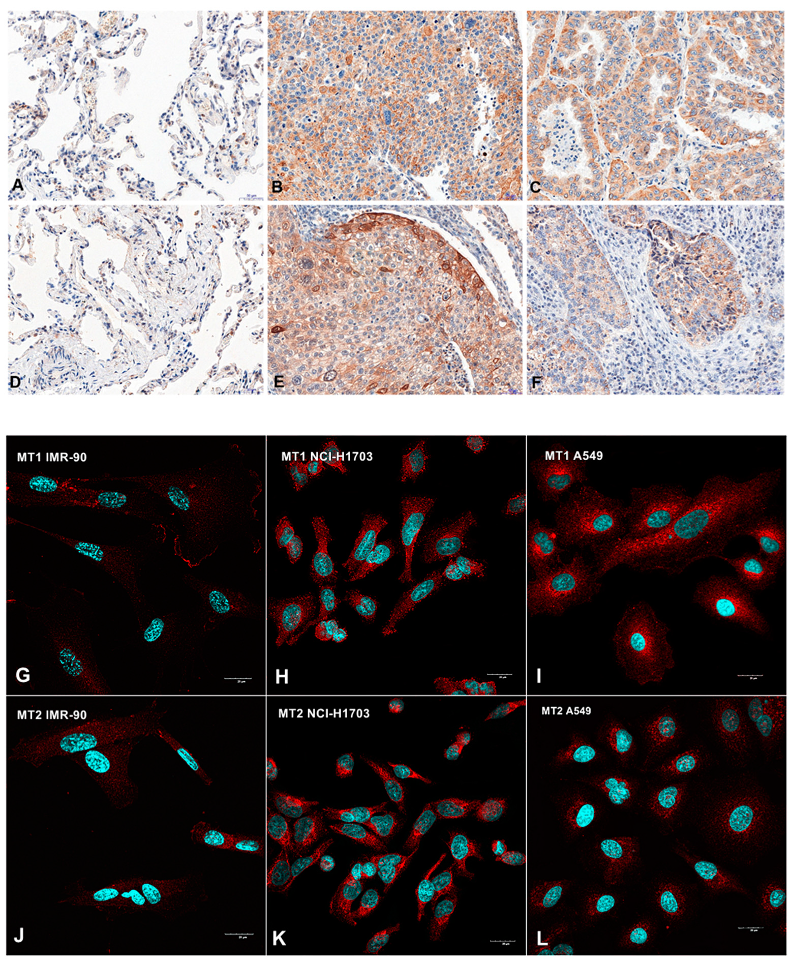 Cancers | Free Full-Text | Prognostic Impact of Melatonin Receptors
