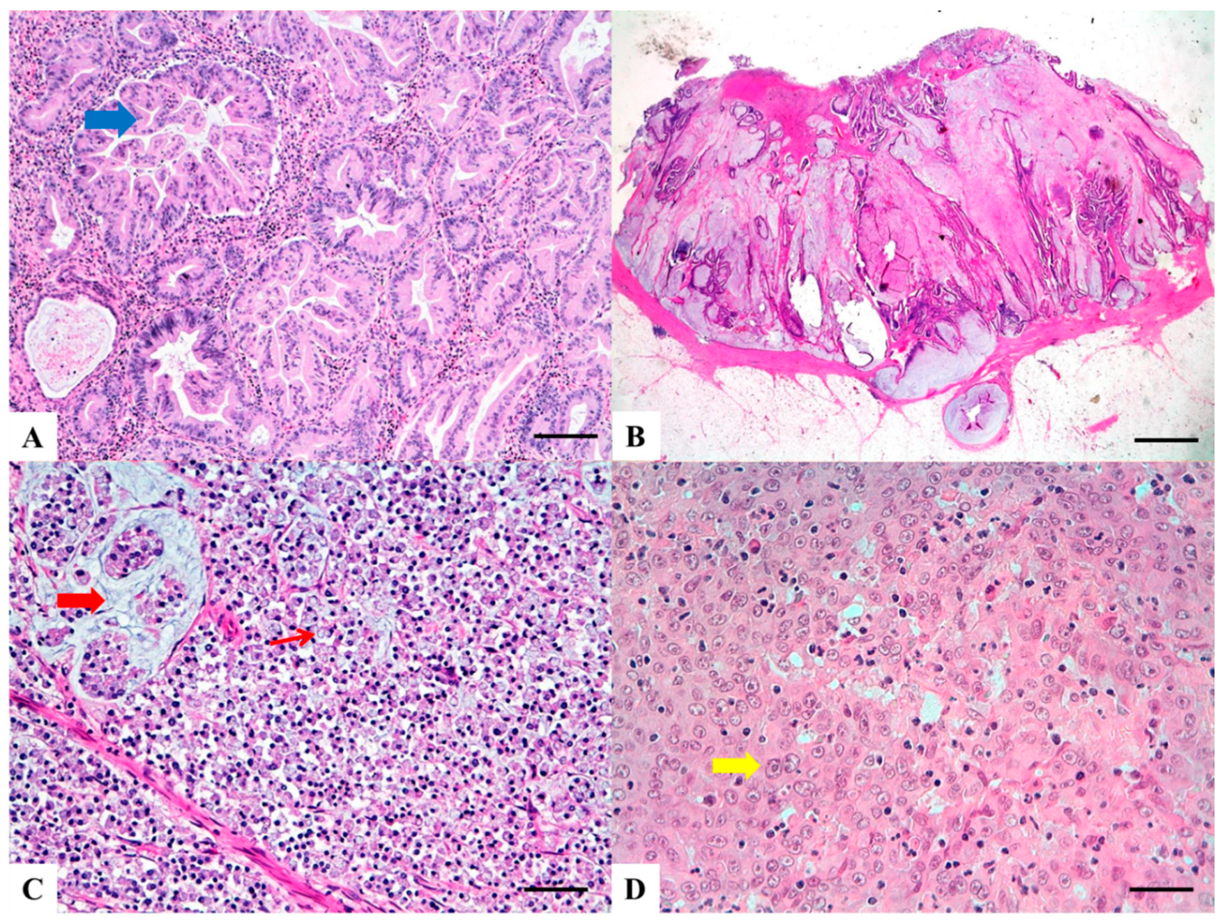 Cancers Free Full Text Morphology And Molecular Features Of Rare Colorectal Carcinoma Histotypes Html