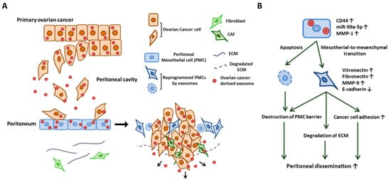 Cancers Special Issue Ovarian Cancer Metastasis