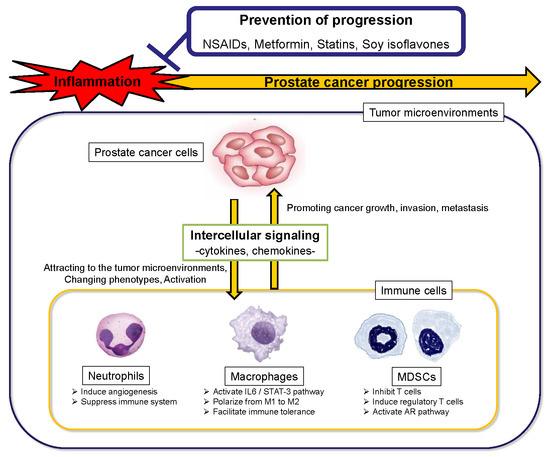 A prosztatitis vodka vajjal való kezelése Hol kell elkezdeni a prosztatitis kezelését