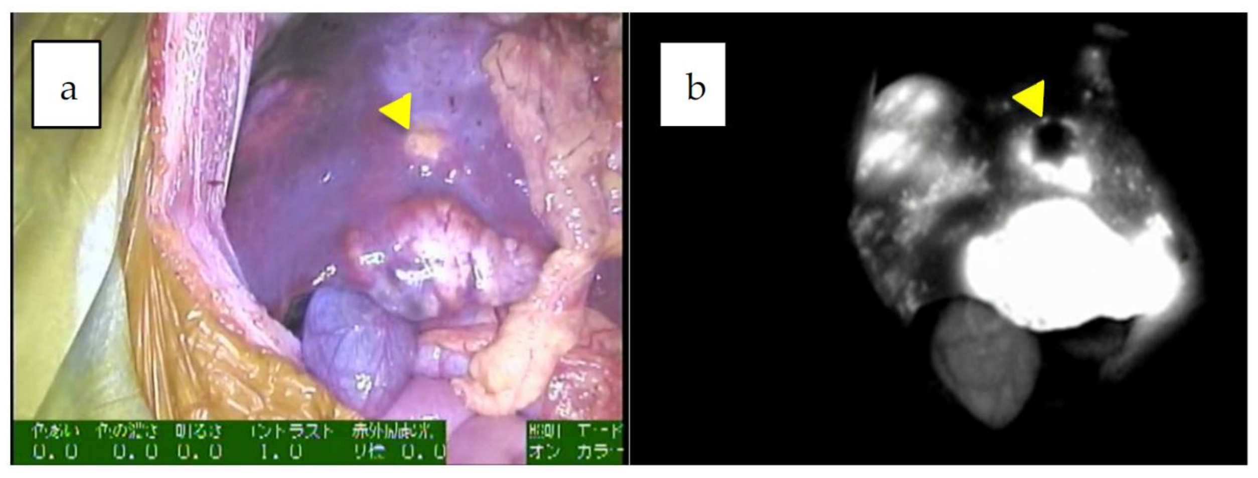 Cancers   Free Full-Text   Fluorescence-Guided Surgery for Hepatoblastoma  with Indocyanine Green   HTML