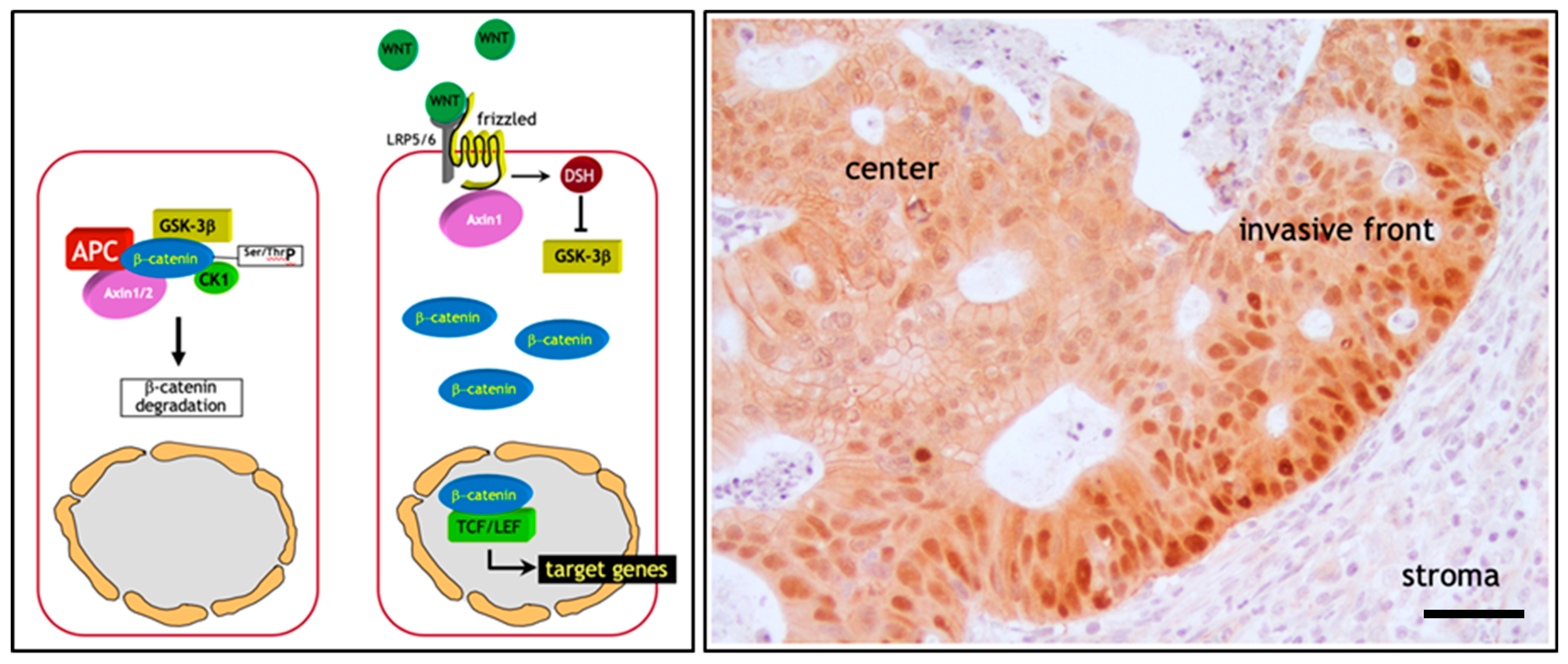 Cancers Free Full Text Cell Heterogeneity And Phenotypic Plasticity In Metastasis Formation The Case Of Colon Cancer Html