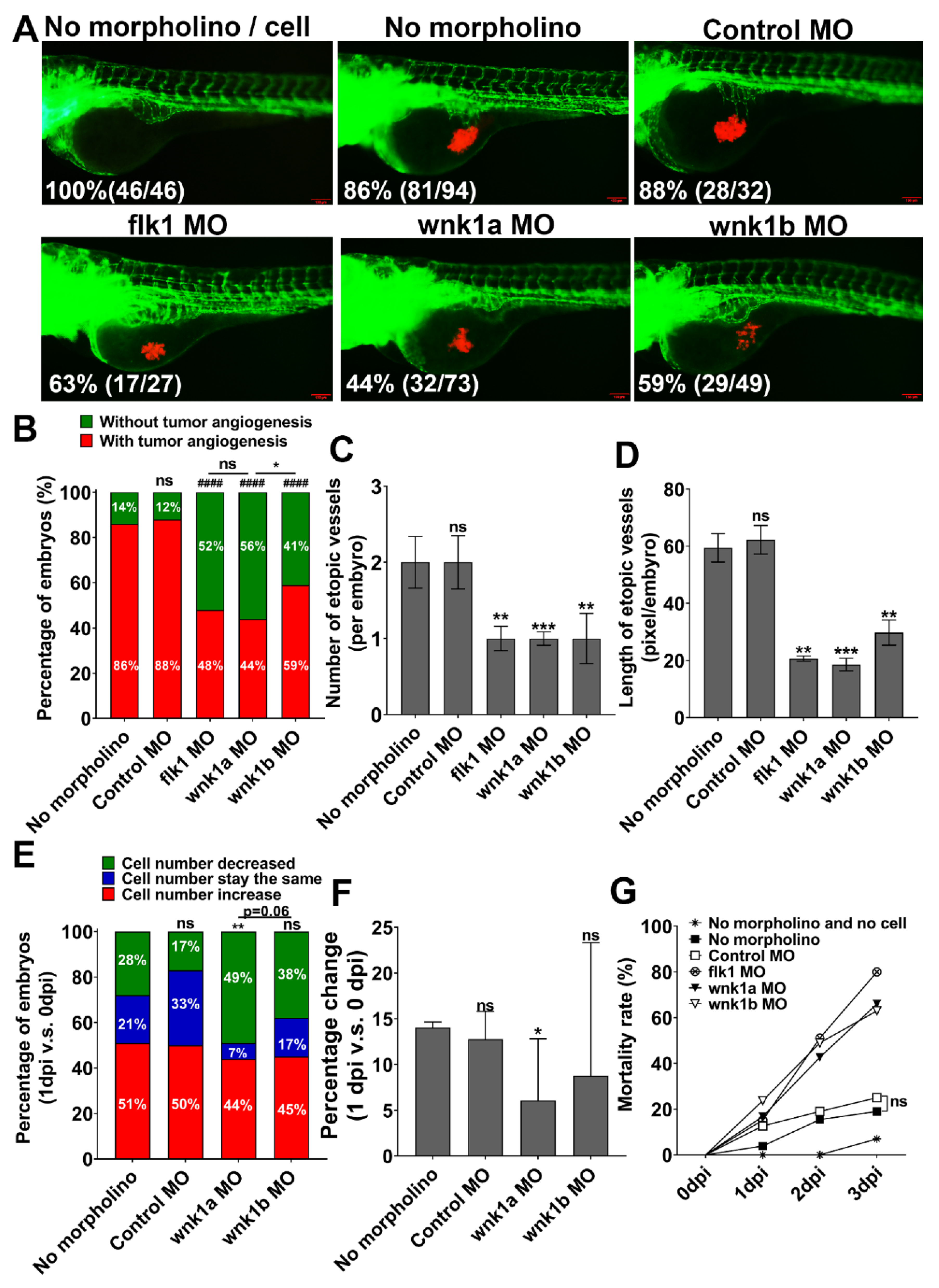 [Full text] CPEB4 promotes growth and metastasis of