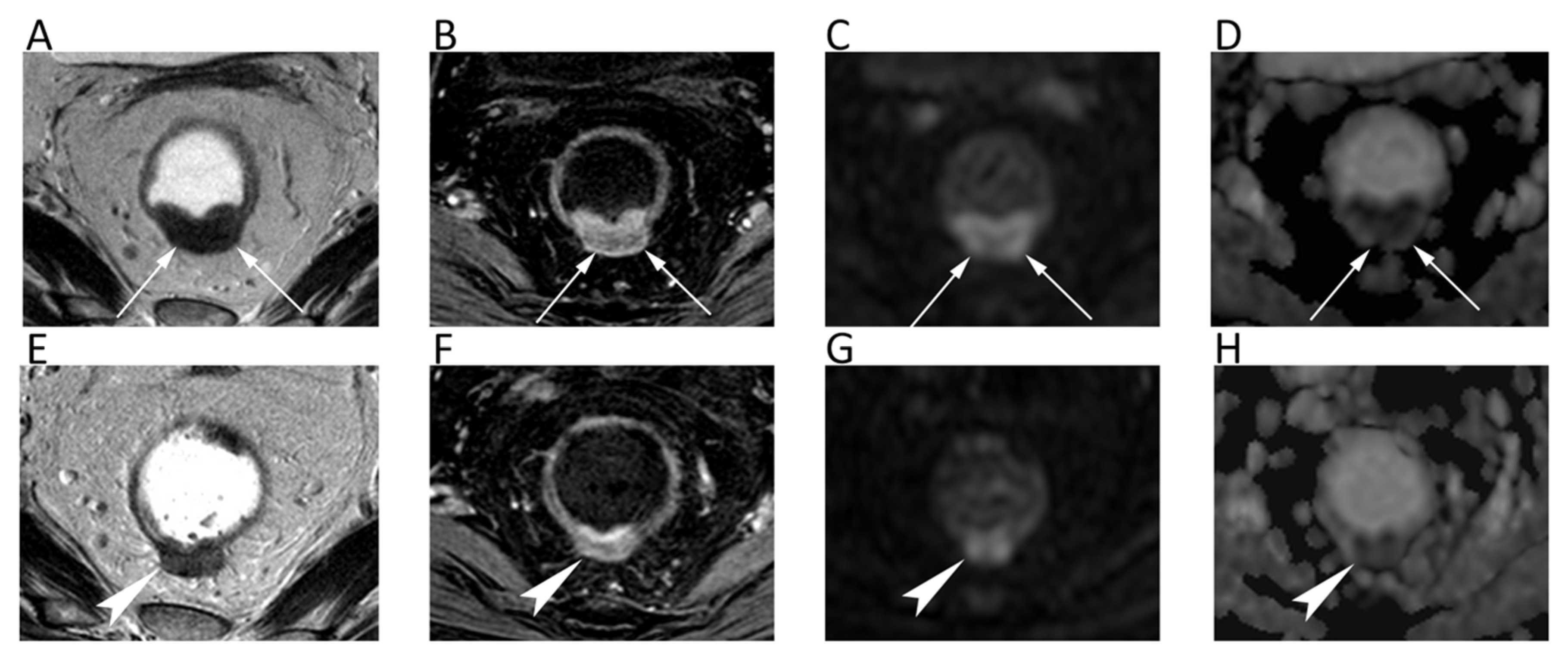 Cancers Free Full Text Diffusion Weighted Imaging In Oncology An Update Html