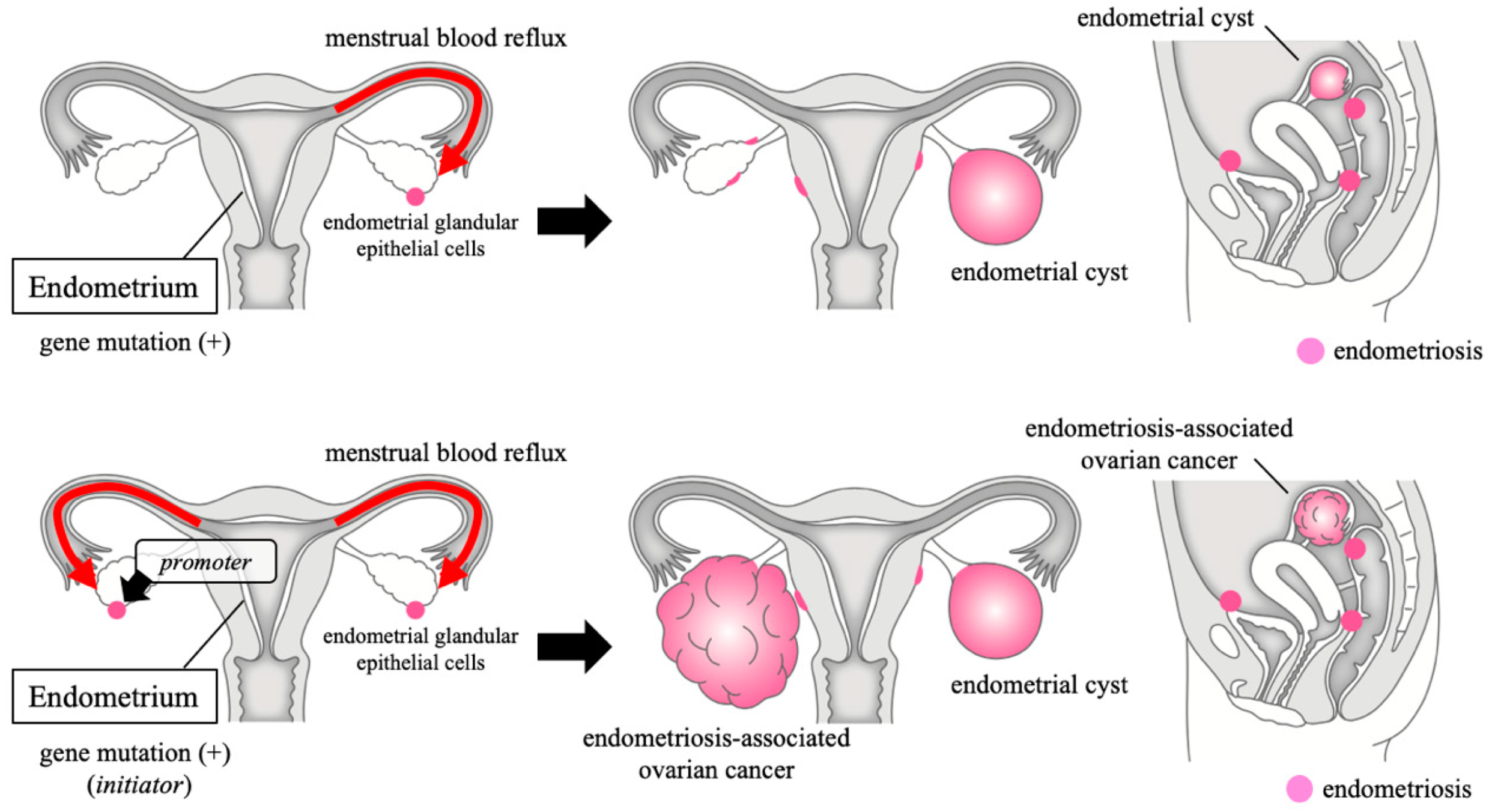 Cancers Free Full Text Endometriosis Associated Ovarian Cancer The Origin And Targeted Therapy Html