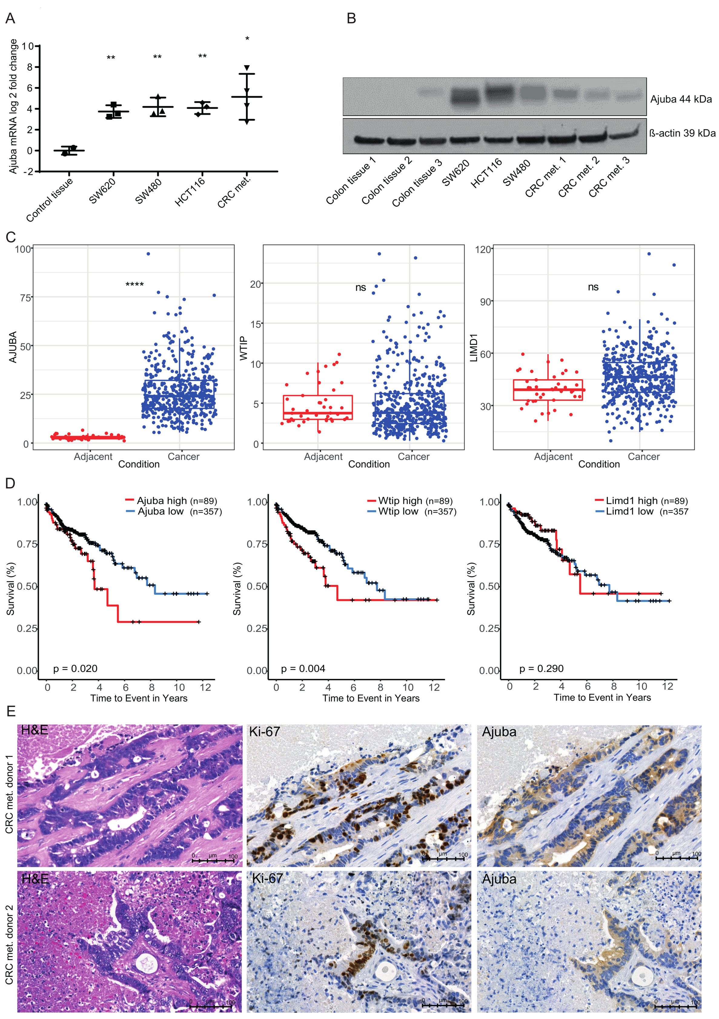 Cancers Free Full Text The Lim Protein Ajuba Augments Tumor Metastasis In Colon Cancer